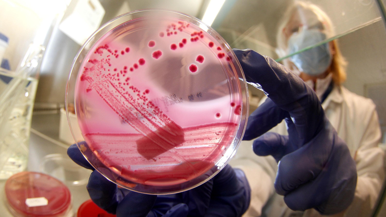 e coli in lab