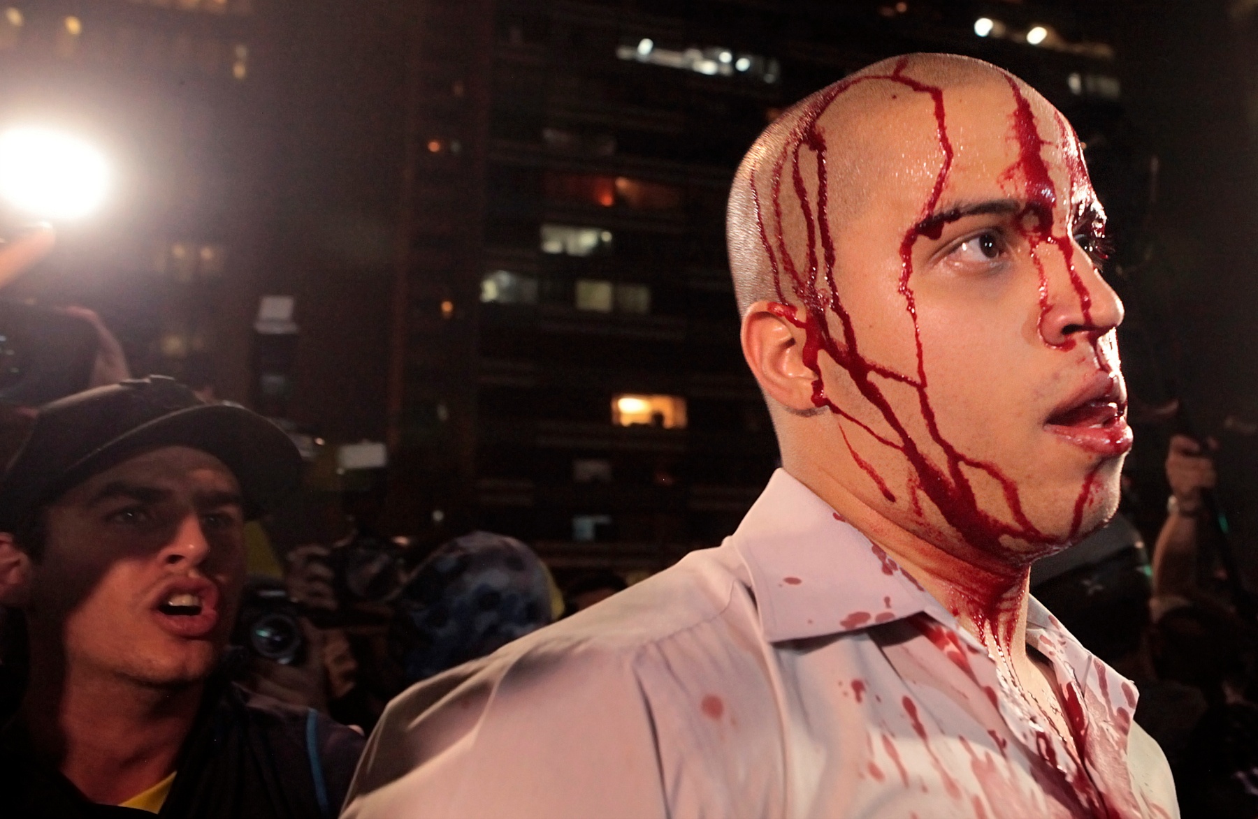 Bloodied protester in Brazil