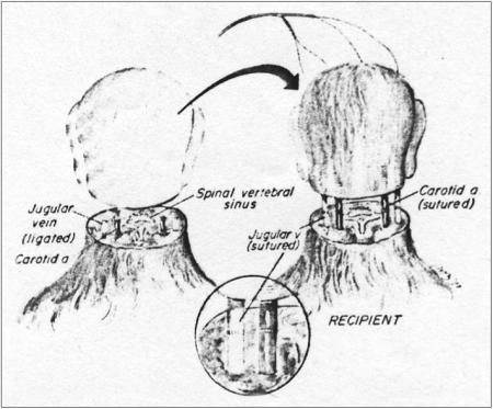 illustration of head transplant in monkey
