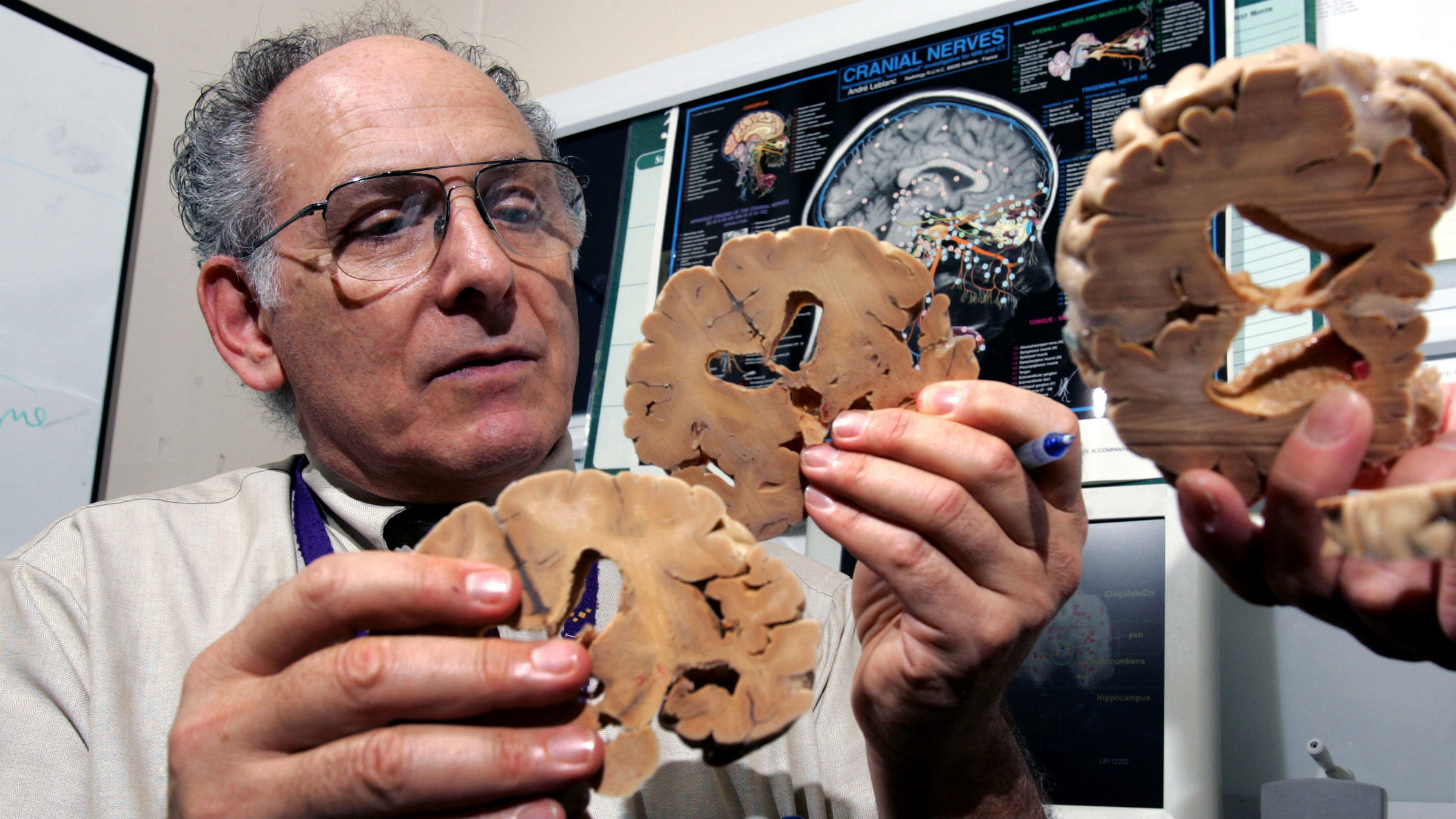 Dr. Barry Komisaruk, Director of Minority Biomedical Research Support Program at Rutgers University uses an actual human brain, that has been preserved and sliced, to talk about sexual responses in the brain as he sits in sit in an office at UMDNJ Hospital in Newark Thursday, Sept. 1, 2005. Using increasingly powerful brain scanners to watch what women's brains do when they have orgasms, researchers like Komisaruk are showing that the best way to satisfy a woman is through her mind.