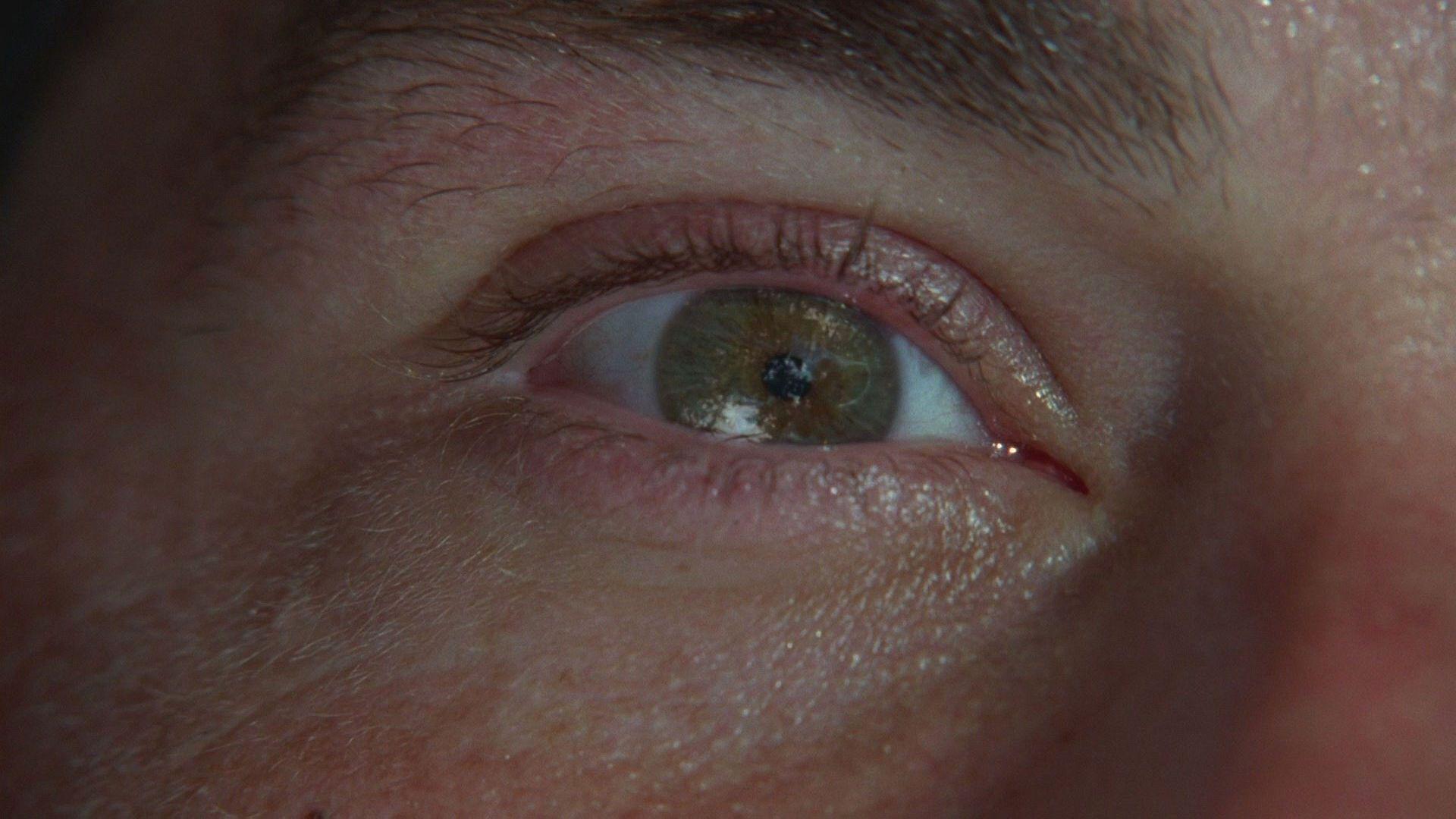 LOST Jack's eye