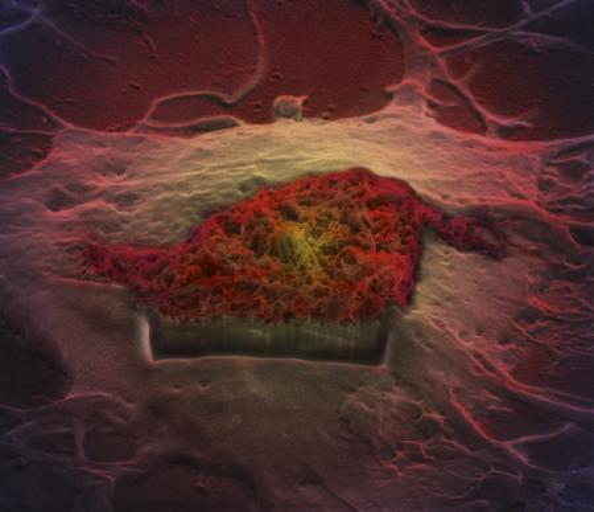 brain astrocyte