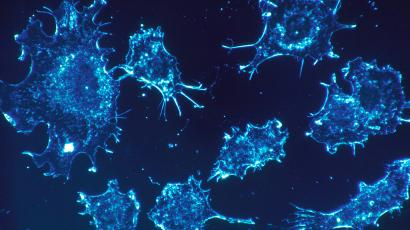 Micrograph of cancer cells