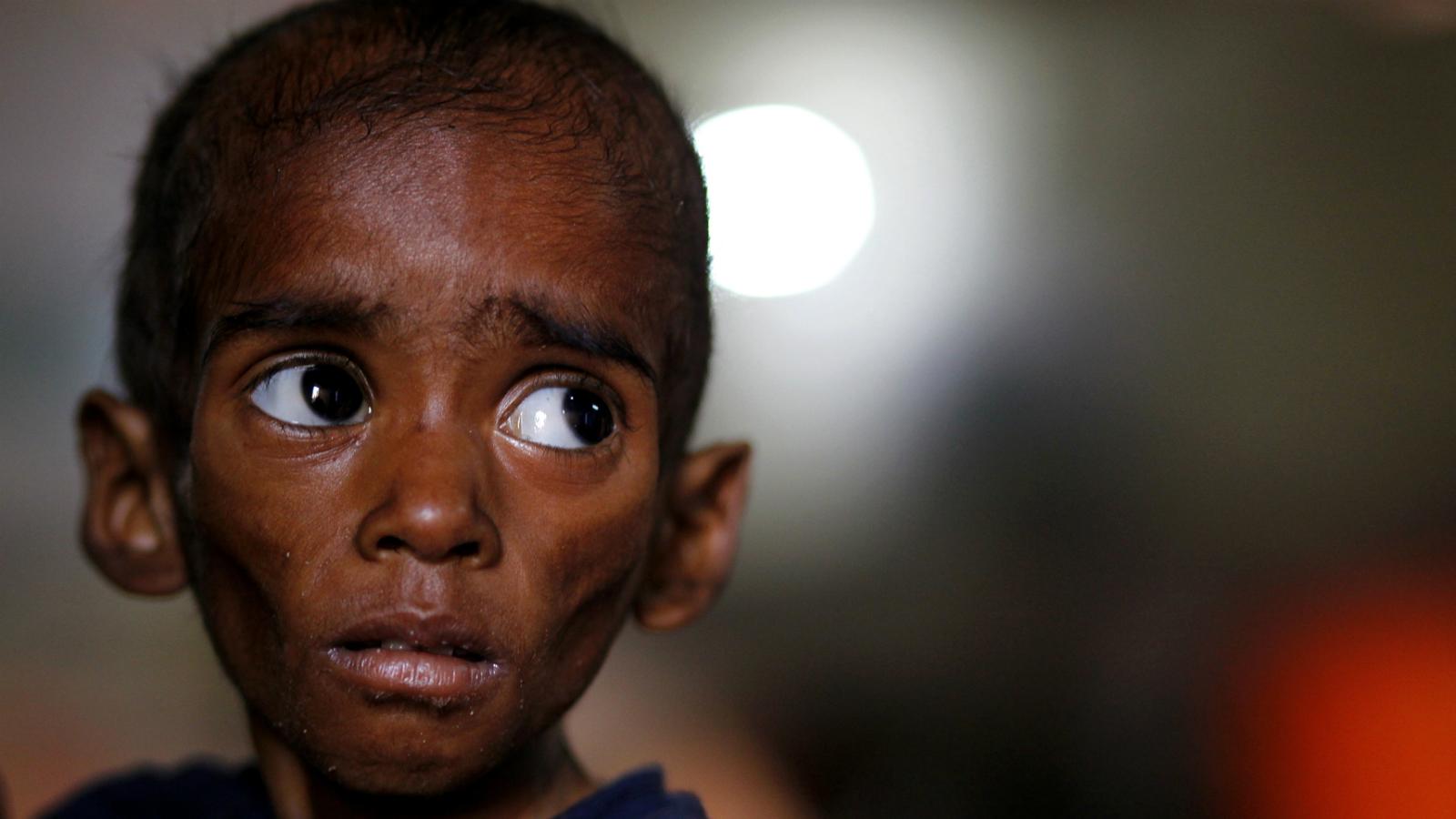 India-malnutrition-Syria
