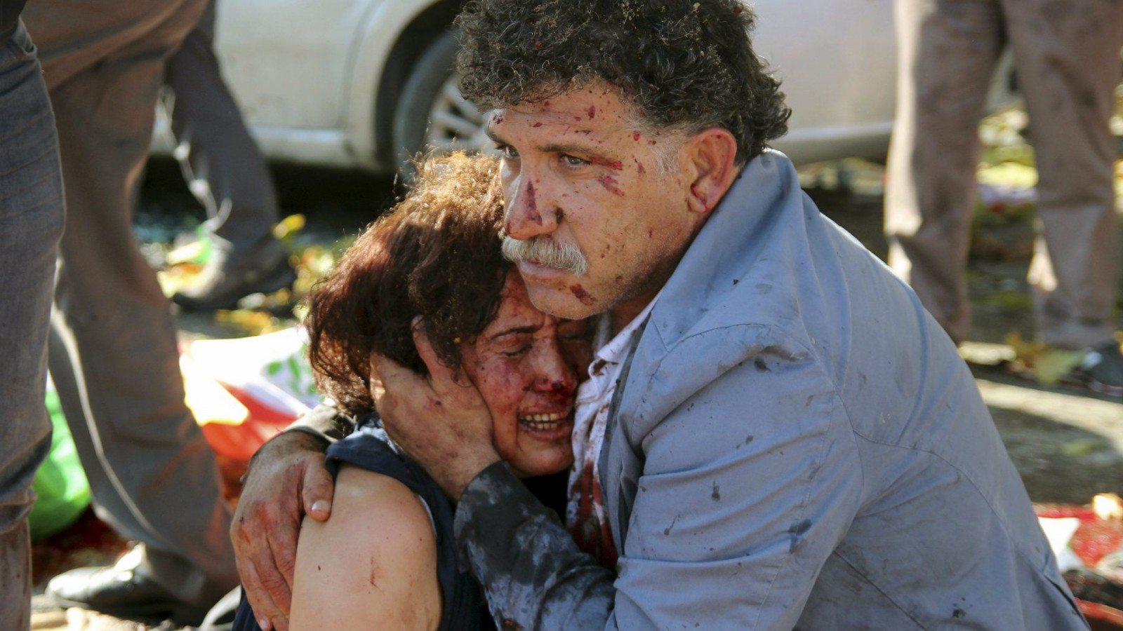 An injured man hugs an injured woman after an explosion during a peace march in Ankara, Turkey.