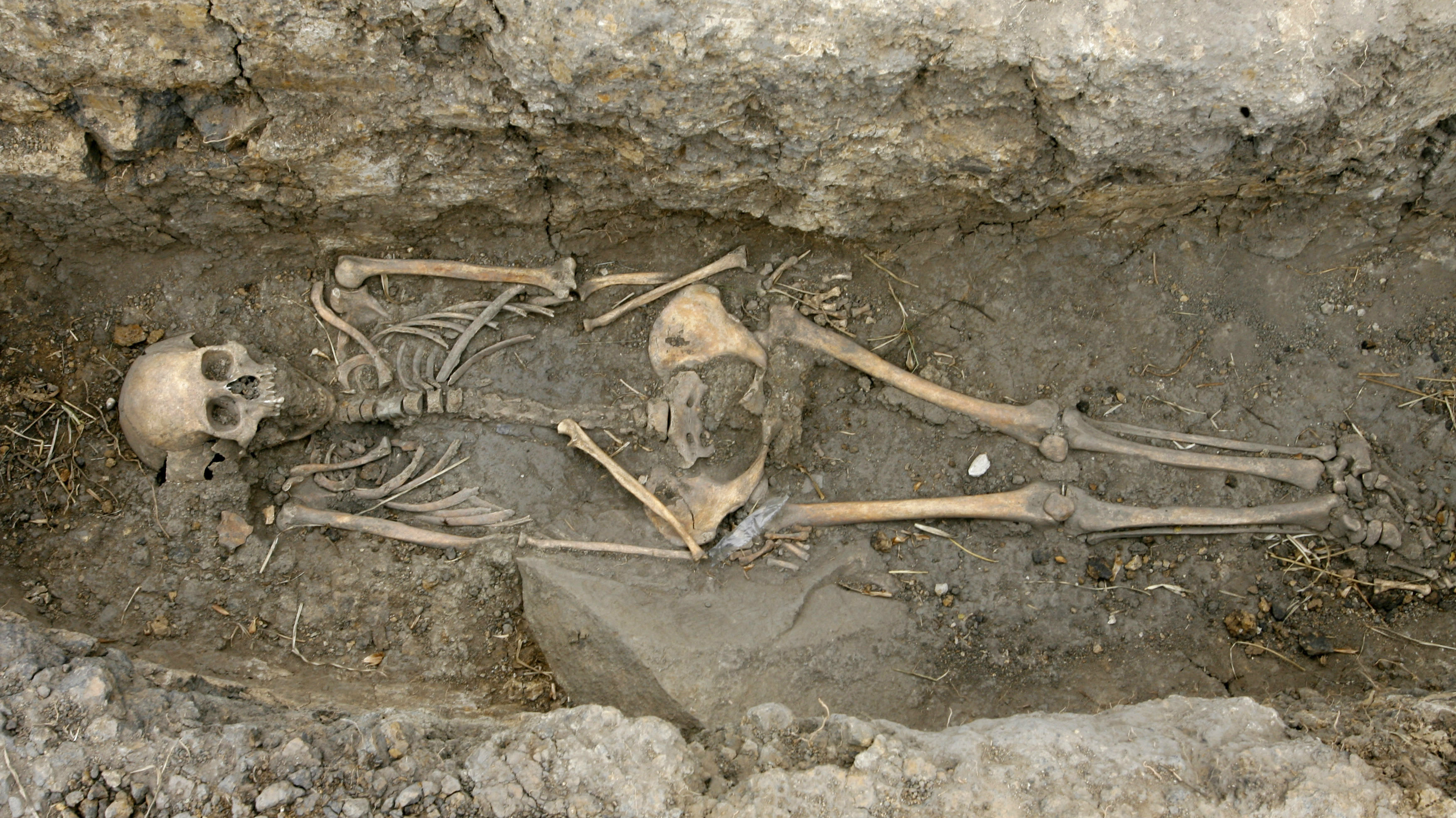 A skeleton is seen at the dig site of tomb in Usme, south of Bogota April 21, 2008.