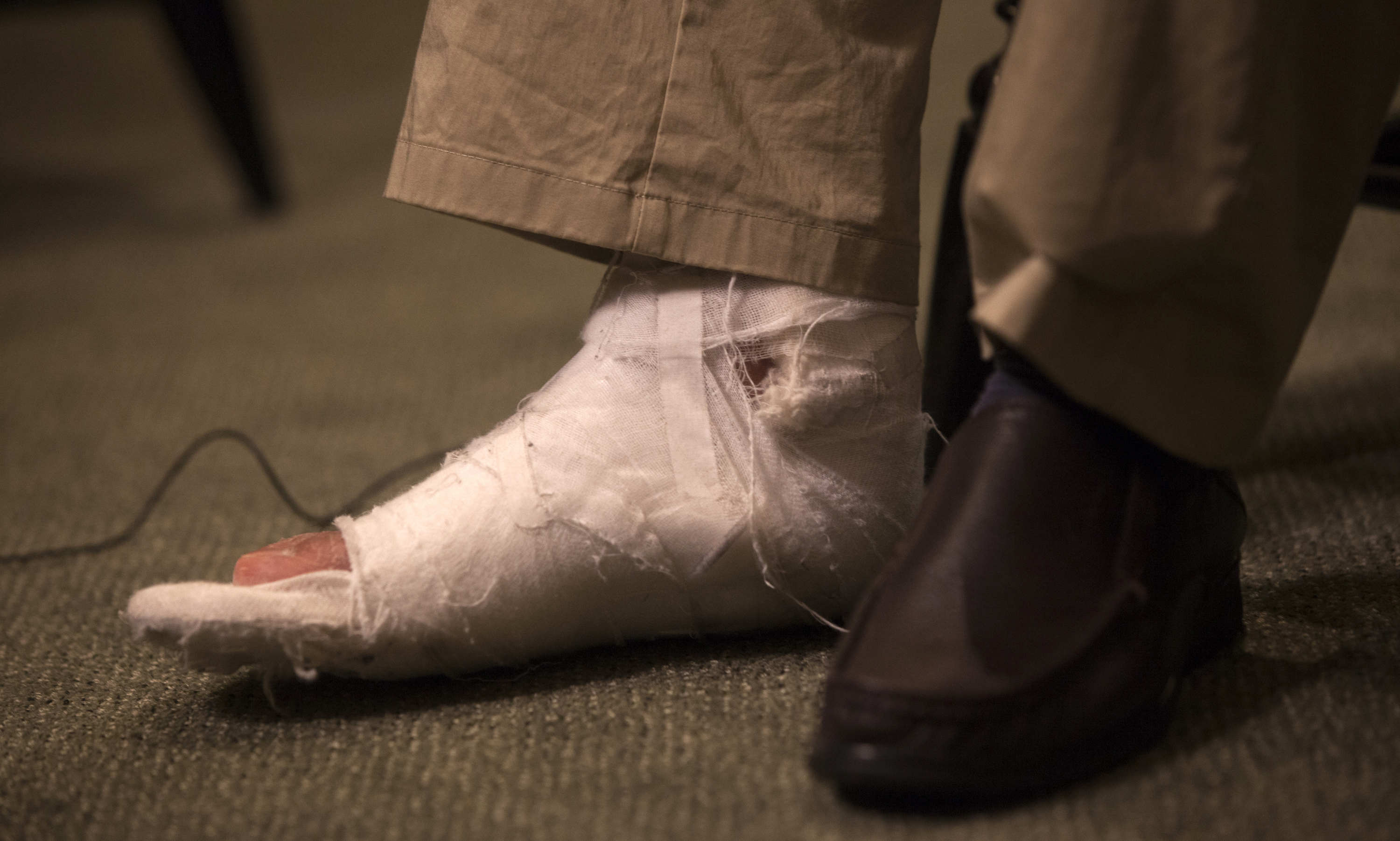 A cast is seen on the right foot of Chen Guangcheng, the blind Chinese dissident and legal advocate who recently sought asylum in the United States, during an interview in New York May 24, 2012. Blind Chinese activist Chen, who flew to the United States last week, said on Thursday China's handling of the local officials who harassed and abused him and his family will determine whether the country can begin to achieve rule of law.   REUTERS/Shannon Stapleton    (UNITED STATES SOCIETY - Tags: POLITICS) - RTR32L5H