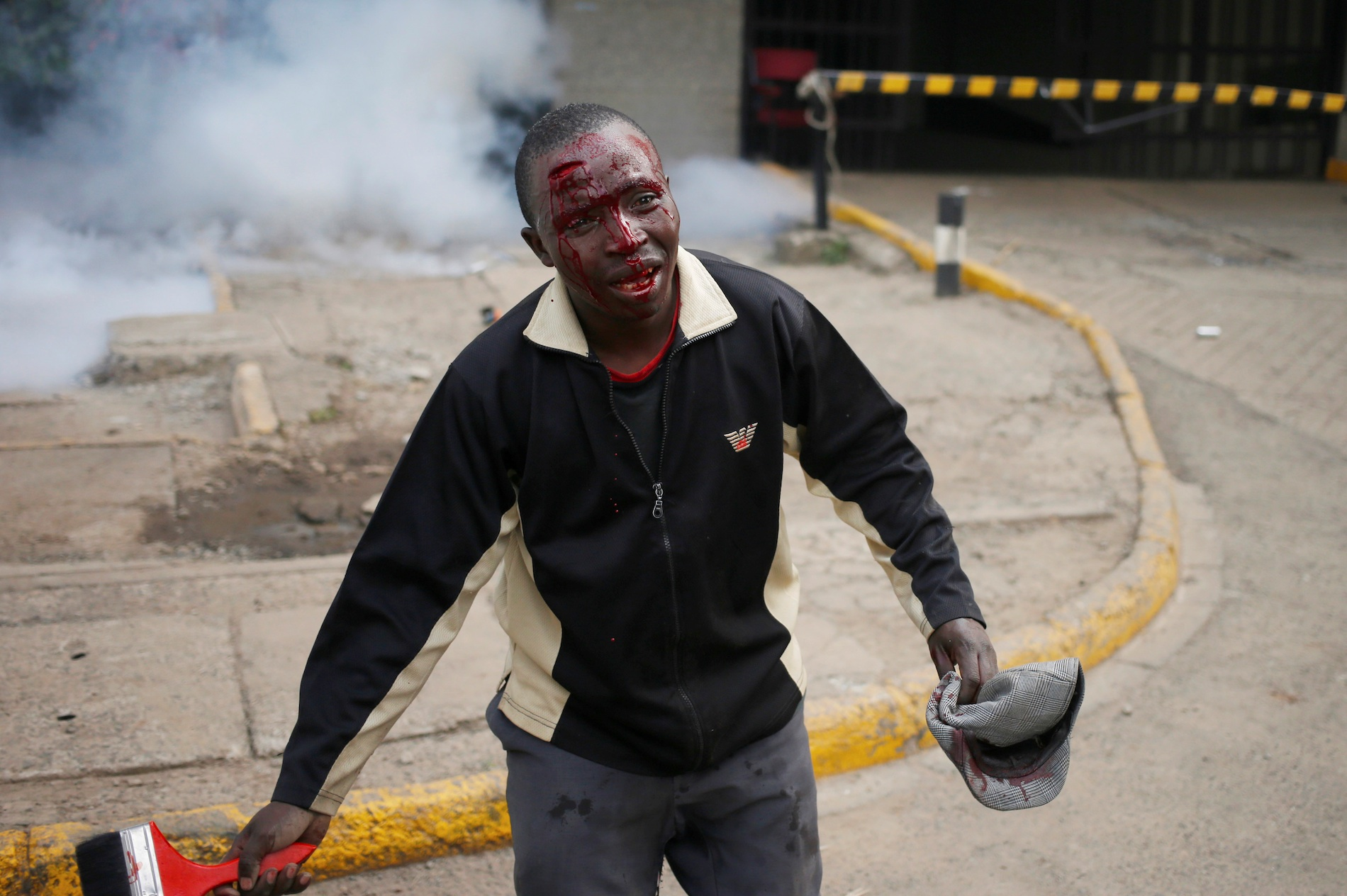 A protester bleeds after clashes with police in Nairobi.