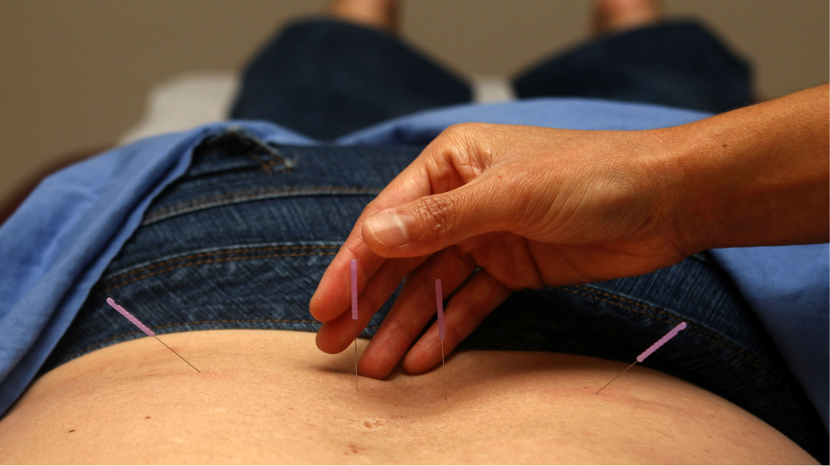 This Oct. 28, 2009 photo shows Christine Kinsella, a licensed acupuncturist and Chinese Herbalist, treating patient Cynde Durnford-Branecki during an acupuncture treatment in San Diego. Durnford-Branecki prefers acupuncture to pain pills, and her insurance covers treatments.