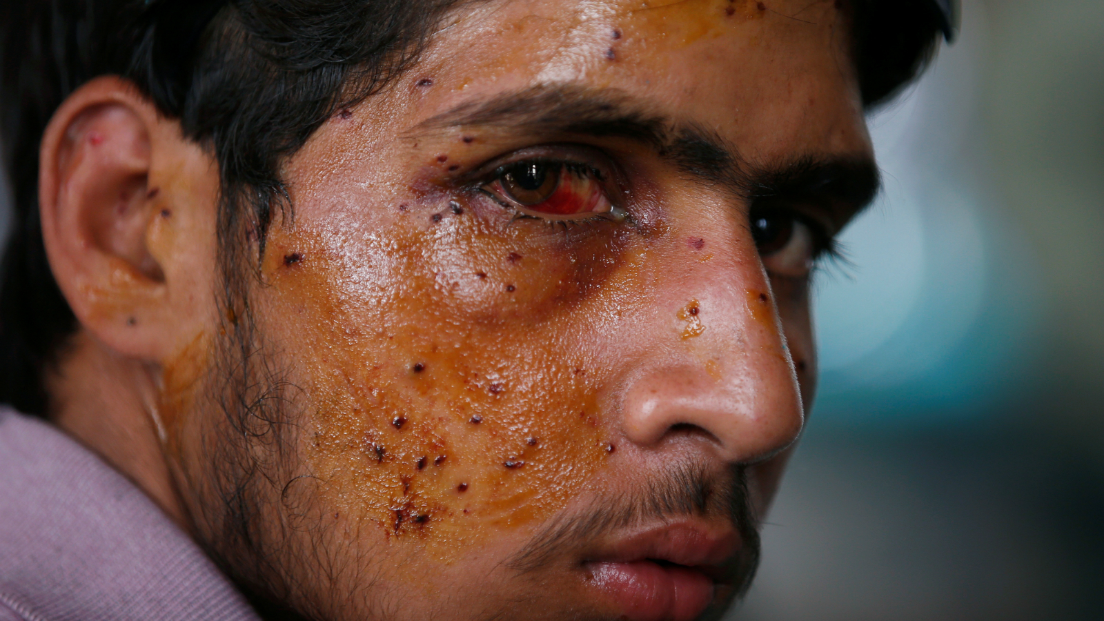 A man who was injured in clashes between Indian police and protesters sits inside a hospital, in Srinagar, July 14, 2016.