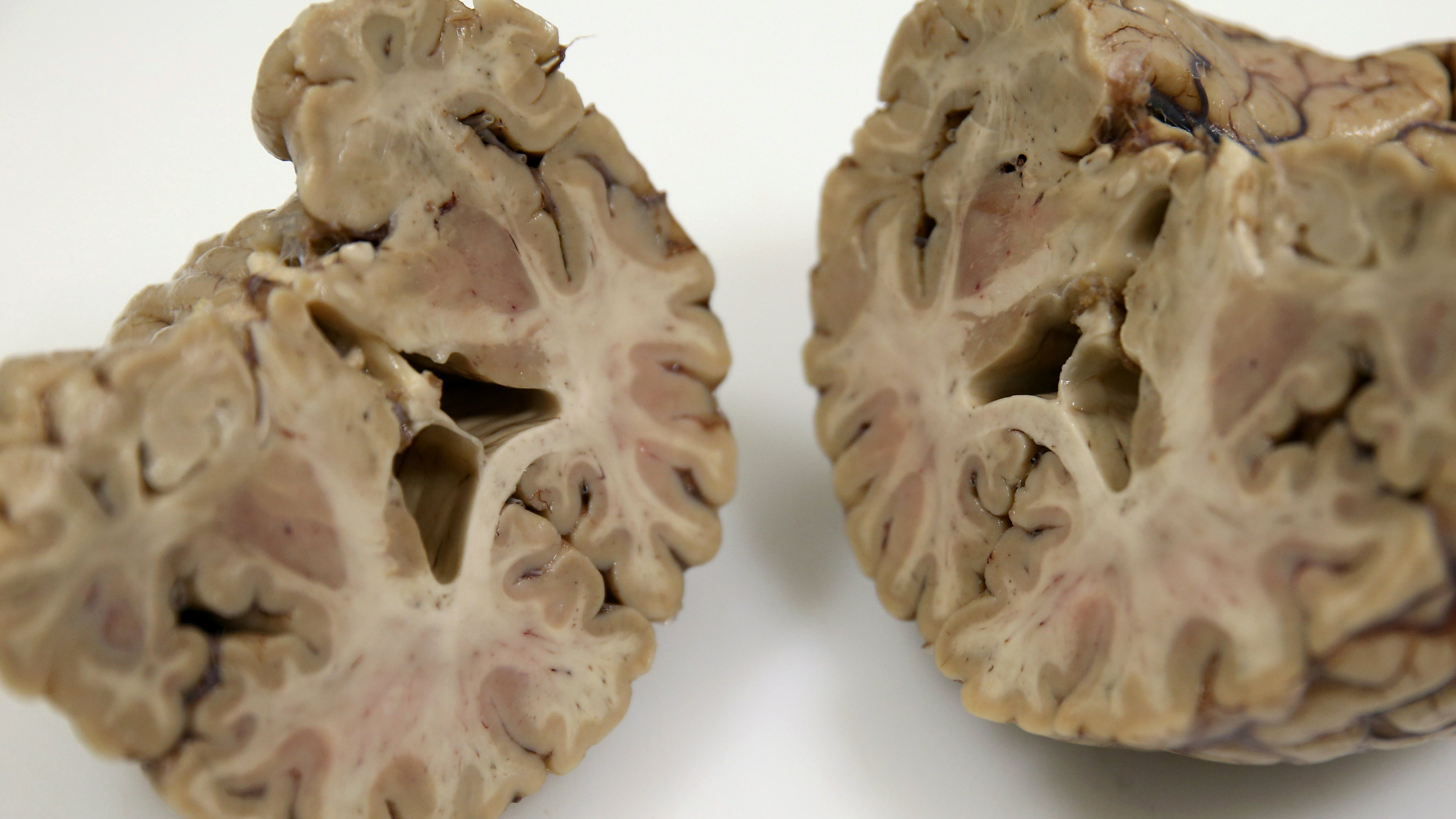 A human brain is shown after being dissected at the Multiple Sclerosis and Parkinson's UK Tissue Bank at Imperial College London, Britain June 3, 2016.