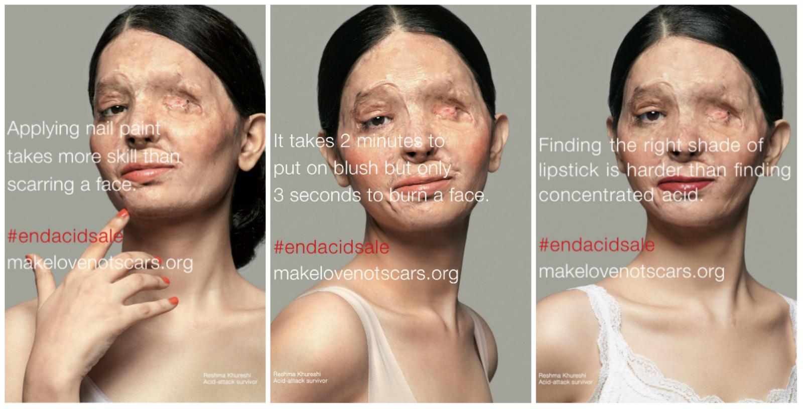 India-acid-attacks-Reshma-Qureshi