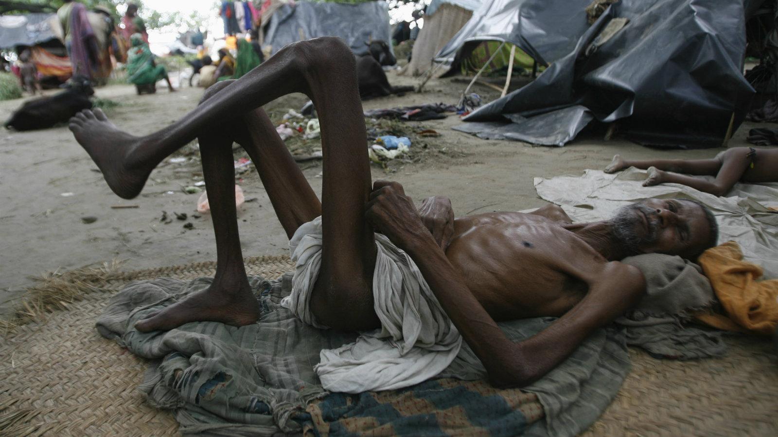 India-malnourished-hunger