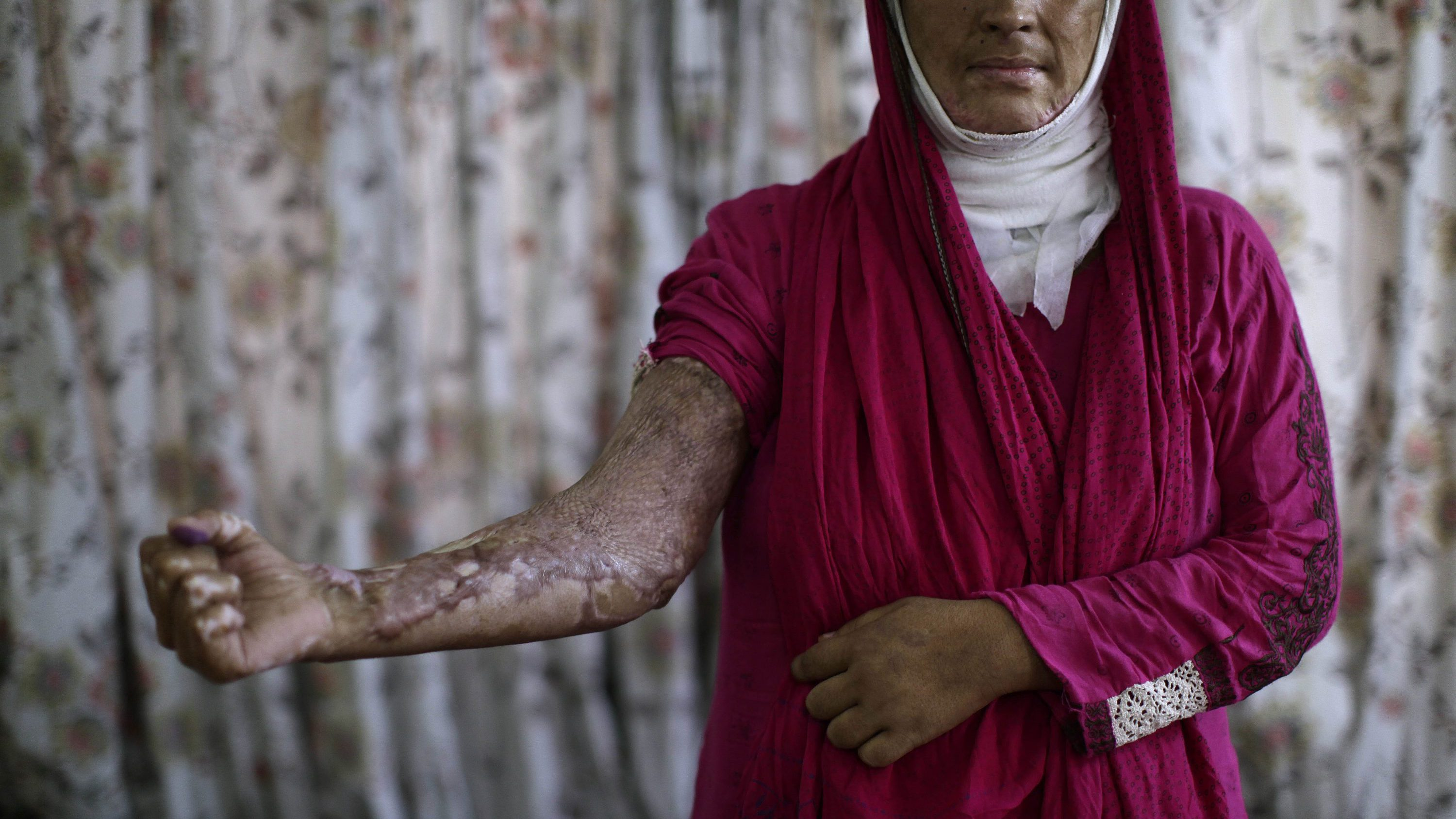 In this May 26, 2012, photo, Pakistani survivor Sajda Ansar, 26, who was set on fire by her husband, shows her burnt arm, at the Acid Survivors Foundation (ASF), in Islamabad, Pakistan. Sajda was set on fire by by her husband in April 2011, following an argument regarding his drug addiction.