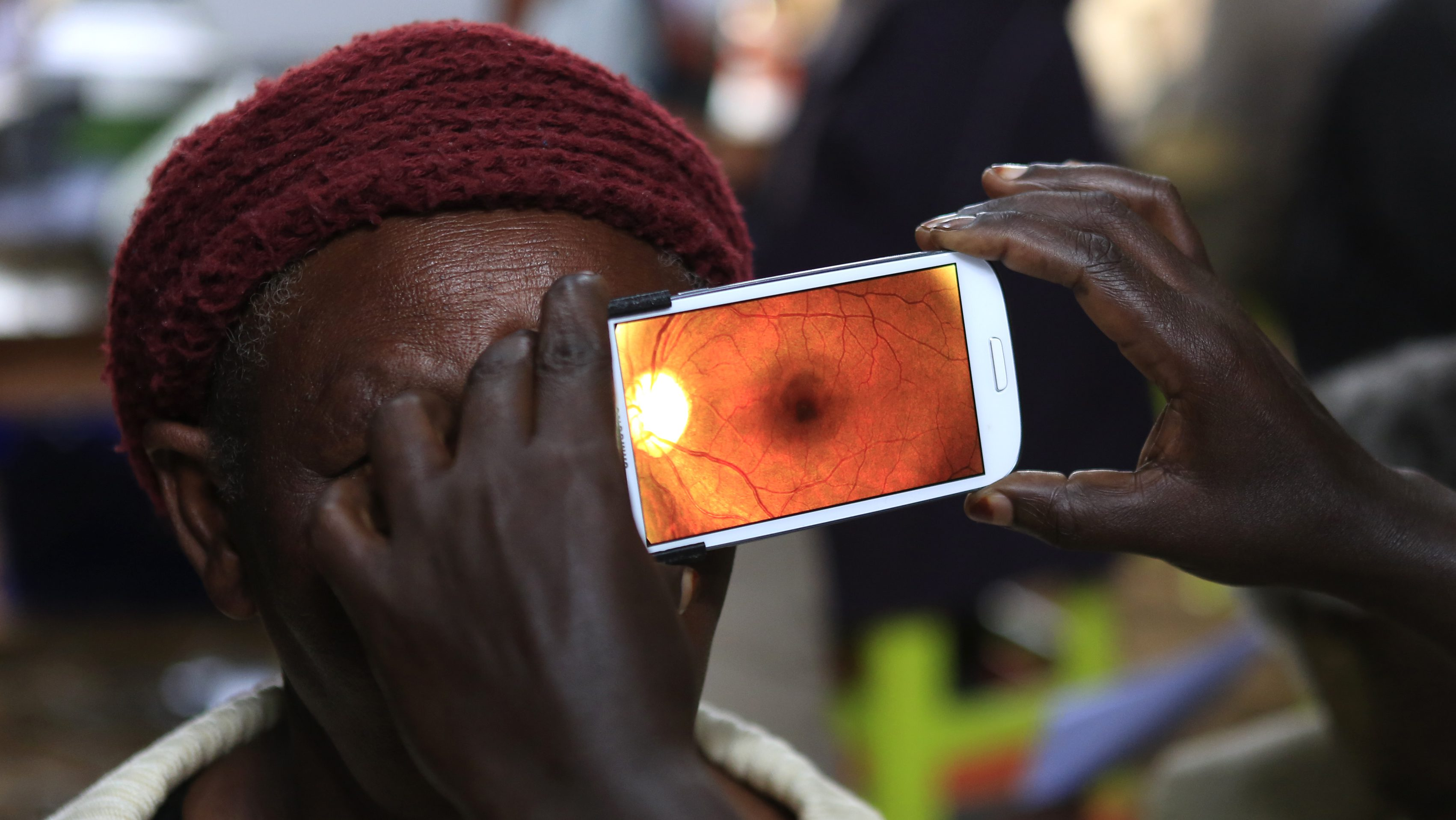 """A woman undergoes an eye examination using of a smartphone at a temporary clinic by International Centre for Eye Health at Olenguruone in the Mau Summit 350km (217 miles) west of Kenya's capital Nairobi, October 29, 2013. The organisation is running clinics for 5000 eye patients using a new application """"Peek Vision"""" that enables doctors to give patients a full eye examination using smartphones. The phone diagnoses and conducts cataract scans, basic eye tests, and uses the phone's flash to illuminate the back of the eye for signs of disease. It also sends all recorded data of a patient along with their location to a doctor for analysis. REUTERS/Noor Khamis (KENYA - Tags: HEALTH SOCIETY SCIENCE TECHNOLOGY) - RTX14SX6"""