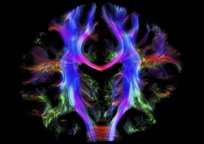 The neuroscience argument that religion shaped the very structure of