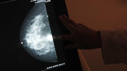 """A monitor shows the image of a breast cancer at a centre run by the """"Reto"""" Group for Full Recovery of Breast Cancer in Mexico City October 18, 2012. Breast cancer has been the leading cause of death in Mexican women since 2006, according to the group. The World Day Against Breast Cancer is commemorated on October 19. REUTERS/Edgard Garrido (MEXICO - Tags: HEALTH ANNIVERSARY) - RTR39B4C"""