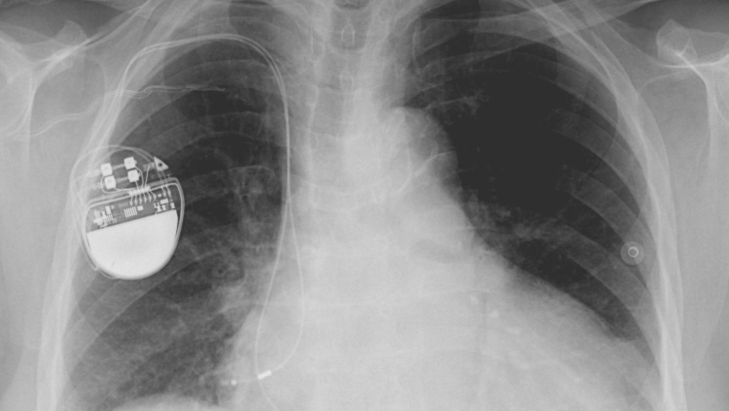 An x-ray image showing a pacemaker implanted in a person's chest.