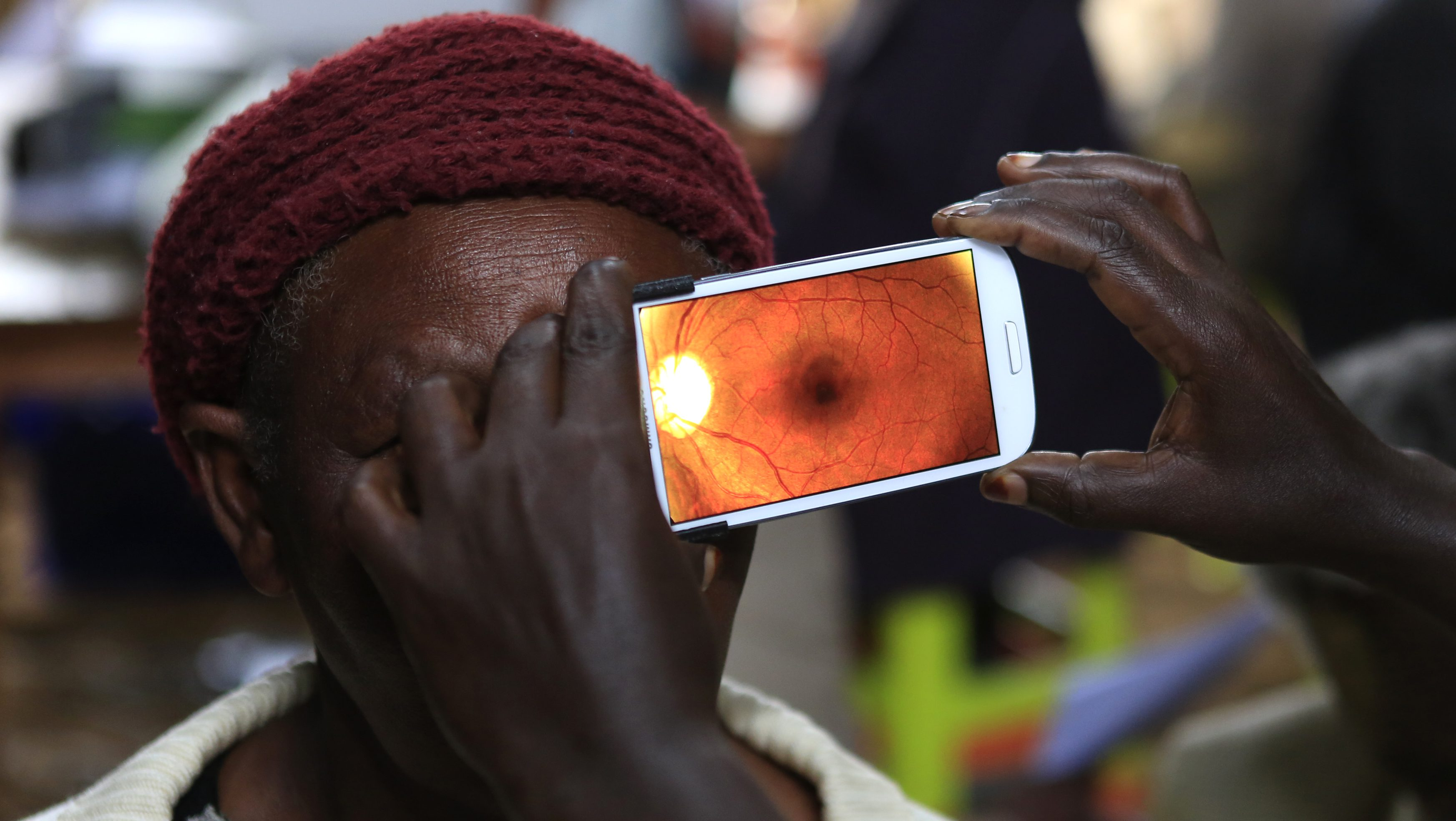 Woman undergoes eye examination using of a smartphone at a temporary clinic by International Centre for Eye Health at Olenguruone in the Mau Summit