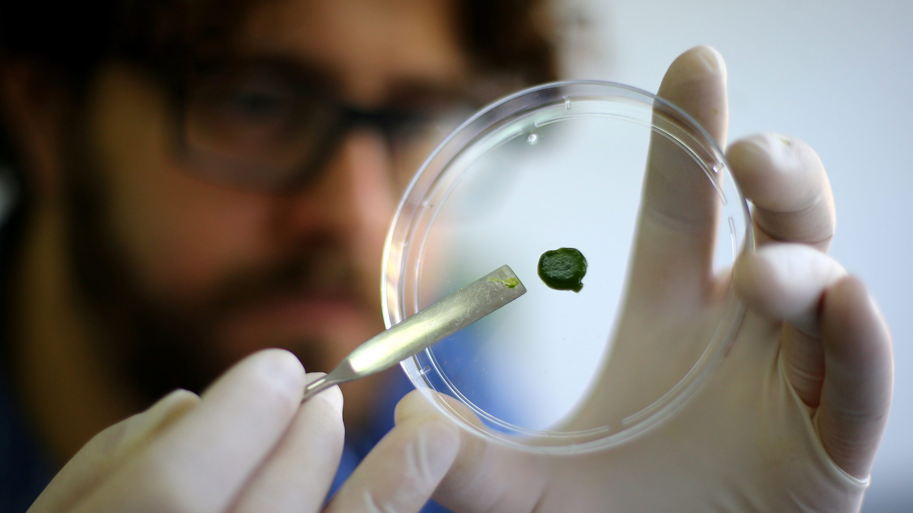 University professor Tomas Egana shows a sample of artificial skin impregnated and coloured with microalgae to allow artificial skin produce oxygen and breathe, in Santiago, Chile, November 24, 2016. Picture taken November 24, 2016.