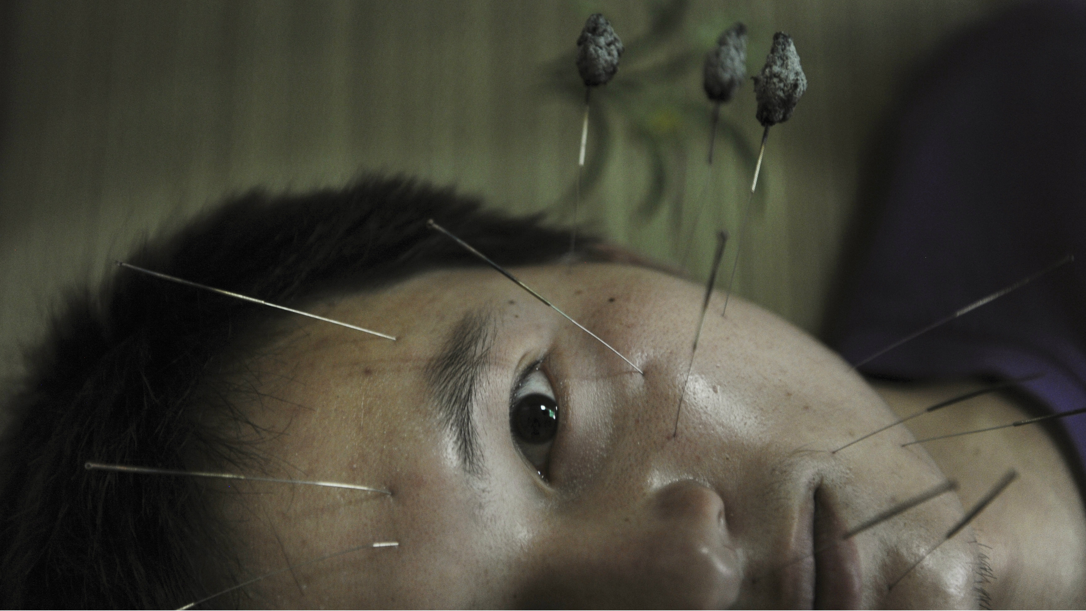 A patient suffering from facial paralysis undergoes acupuncture treatment at a traditional Chinese medical hospital in Jiaxing, Zhejiang province, July 11, 2012. REUTERS/Stringer (CHINA - Tags: HEALTH SOCIETY TPX IMAGES OF THE DAY) CHINA OUT. NO COMMERCIAL OR EDITORIAL SALES IN CHINA