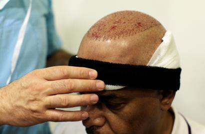 Turkey's hair-transplant tourism industry is unsafe for patients and