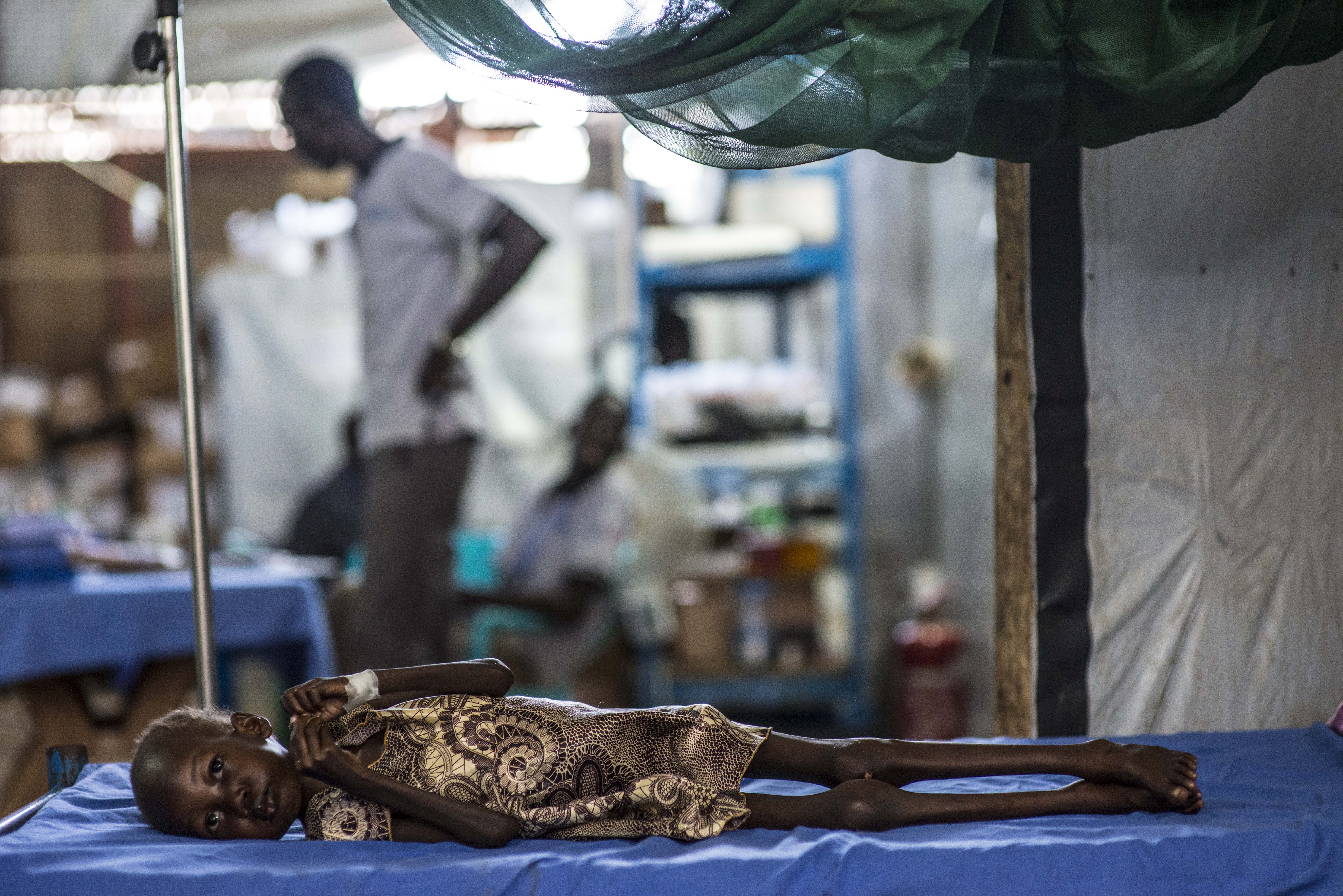 """Nyajime Guet, 4, who is suffering from severe acute malnutrition and tuberculosis, lies on a bed at a UNICEF-supported clinic where she is being treated, at the Protection of Civilians (PoC) site in Juba, South Sudan, Monday, 12 October 2015. A four-year-old of her age and height should weigh 19.5 kilograms, rather than the 9 kilograms Nyajime weighs.  Four-year-old Nyajime Guet was suffering from severe acute malnutrition (SAM) with medical complications when she was admitted on 12 October 2015 to the UNICEF-supported clinic at the Protection of Civilians (PoC) site in Juba, South Sudan. Weighing just nine kilograms, rather than the 19.5 kilograms a healthy girl of her age and height should weigh, Nyajime was emaciated and near death.  Nyajime's family, comprising of her parents and two siblings, arrived at the Juba PoC in November 2014. Her father Michael View, 39, studies social science at Upper Nile University in Juba. When fighting broke out in Bentiu, the university offered support to move Michael and his family to the PoC site in Juba, so that he could continue his studies and keep his wife and children safe. With no income, the family relies on food and services provided by the UN.  """"There was no food at home and we couldn't feed her well,"""" says Michael talking about his daughter Nyajime, """"she was getting more and more sick every day. The day when I brought her to the clinic she wasn't moving, she couldn't walk or sit.""""   With the intervention of closely monitored feeding of UNICEF provided milk-based fortified food that is full of nutrients, along with drugs to combat her tuberculosis, Nyajime improved steadily. Within two weeks, Nyajime was on the path to a full-recovery. Ten-months on, she is nothing like the emaciated little girl who was first admitted. Nyajime still attends regular check-ups with medical staff to monitor her weight and to treat her tuberculosis, but she is progressing well and healthy enough to attend school."""