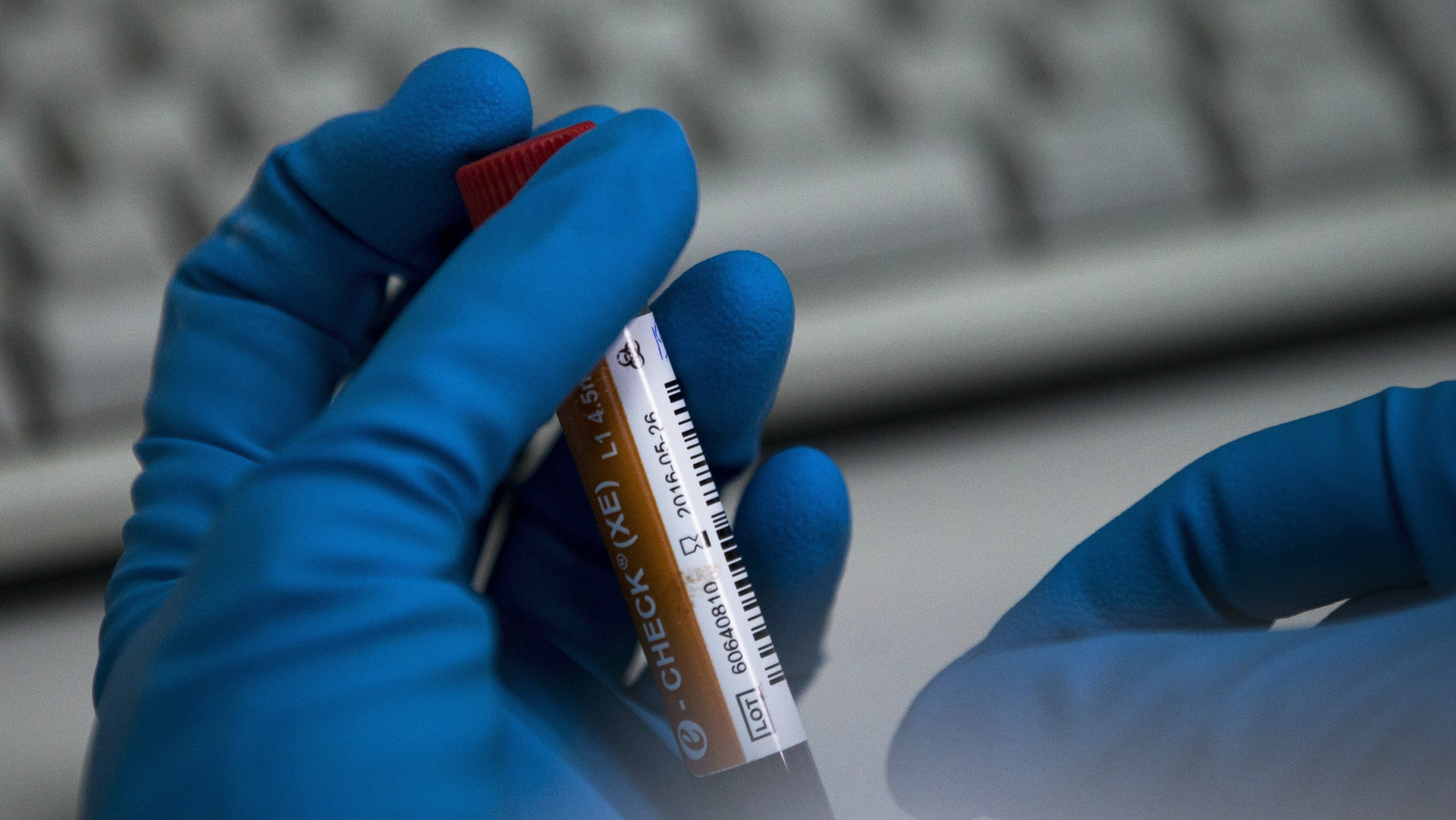 """FILE In this Tuesday, May 24, 2016 file photo an employee of the Russia's national drug-testing laboratory holds a vial in Moscow, Russia. It was at this laboratory, and its former site elsewhere in Moscow, that lab director Grigory Rodchenkov conducted pioneering research into steroids, at the same time as he says he was giving Russian athletes a """"cocktail"""" of banned substances. (AP Photo/Alexander Zemlianichenko, file)"""