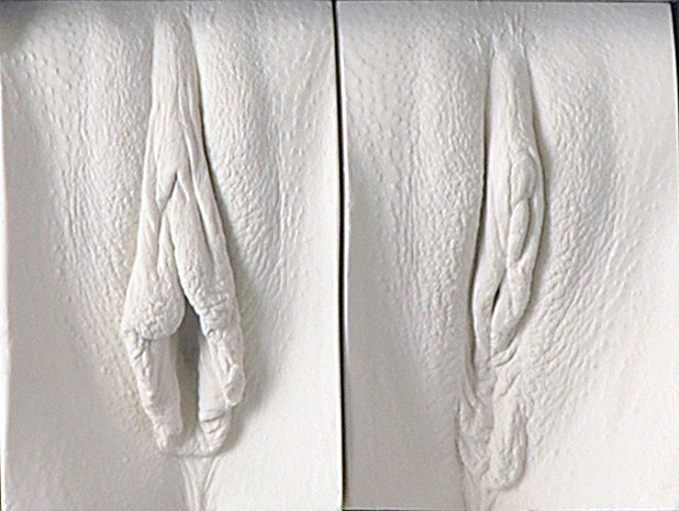 Detail showing a vulva pre and post labiaplasty.