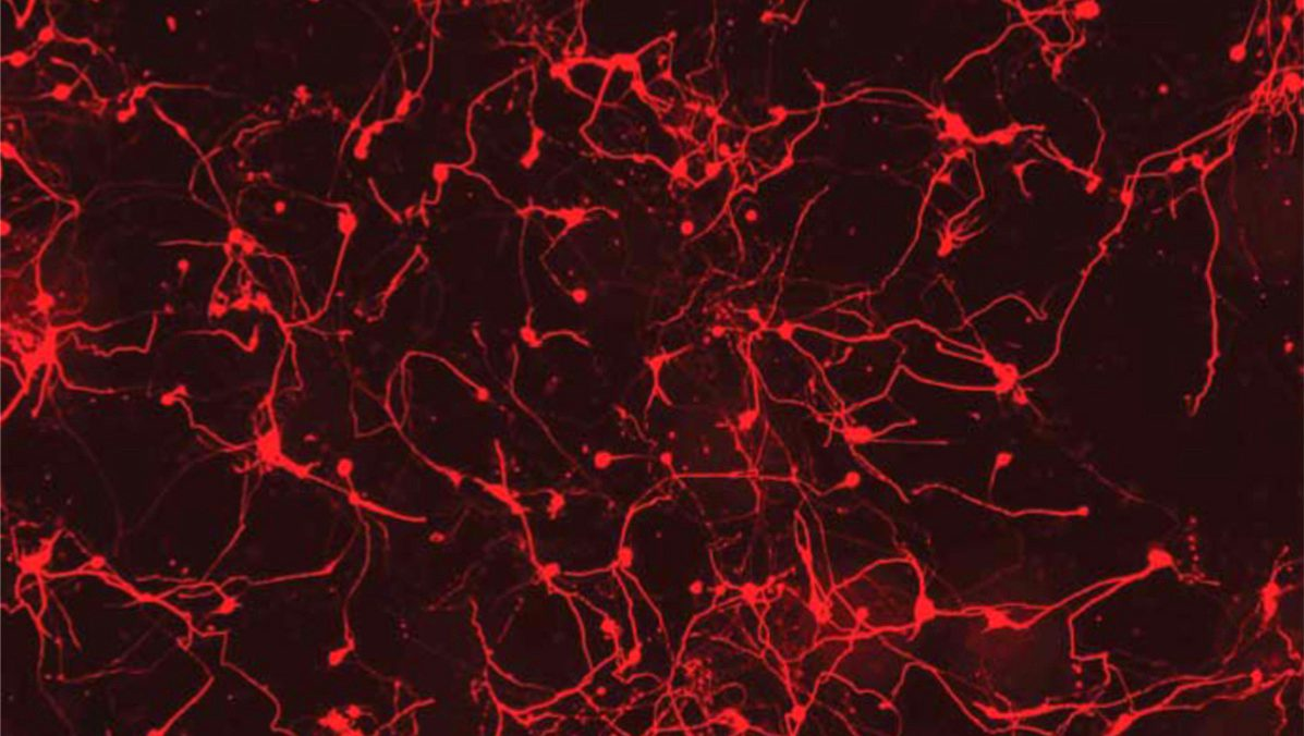 Research Identifies Complex Of Neurons >> Mit Researchers Can Now Track Artificial Intelligence S