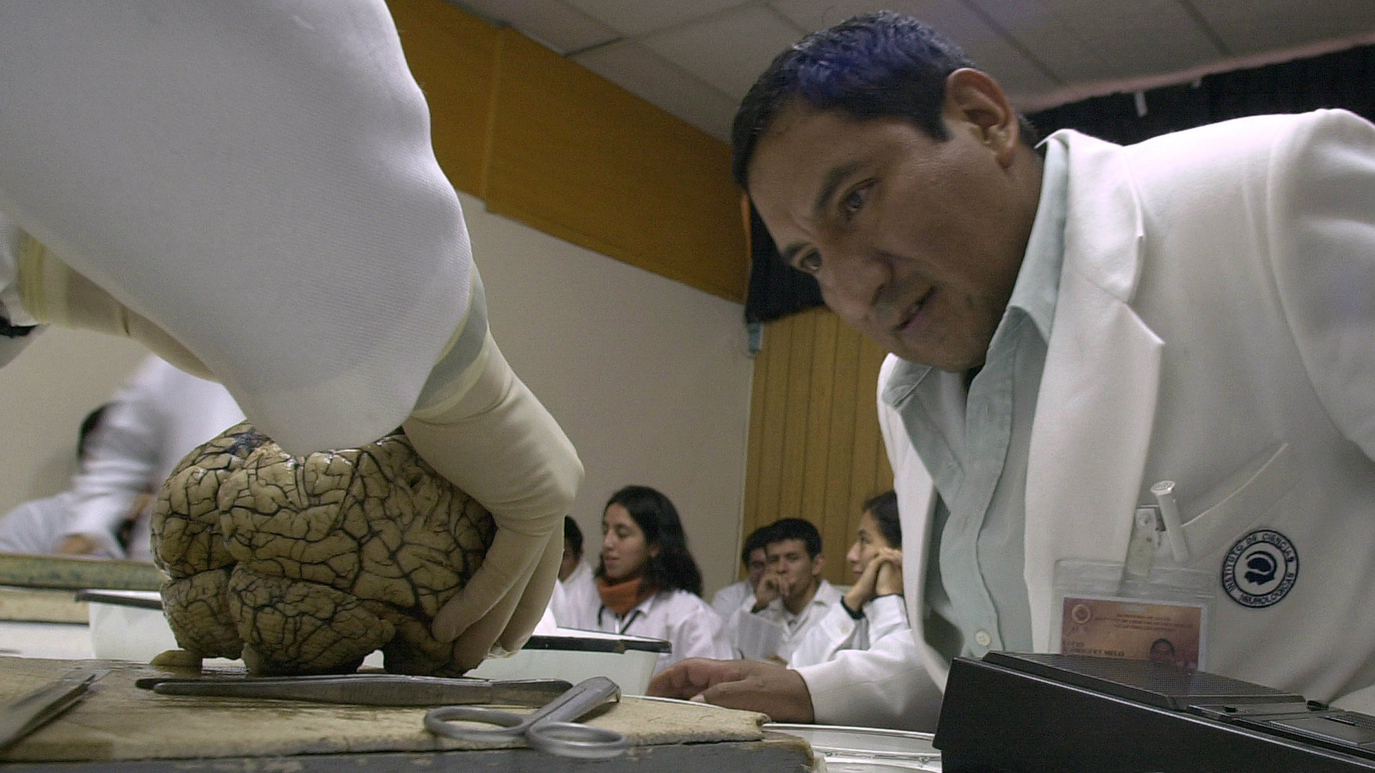 A medical student watches as a professor dissects a human brain at the Neurological Sciences Institute's brain museum in Lima, Peru, July 4, 2002.