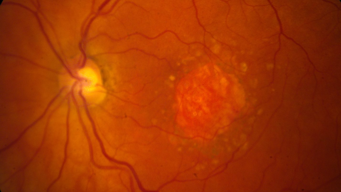 "This image provided by the National Eye Institute shows a microscopic image of a retina being damaged by the so-called ""dry"" form of age-related macular degeneration. An experimental drug is showing promise against an eye disease that blinds older adults. Age-related macular degeneration gradually erodes seniors' central vision, making it difficult to read or see faces. (National Eye Institute via AP)"