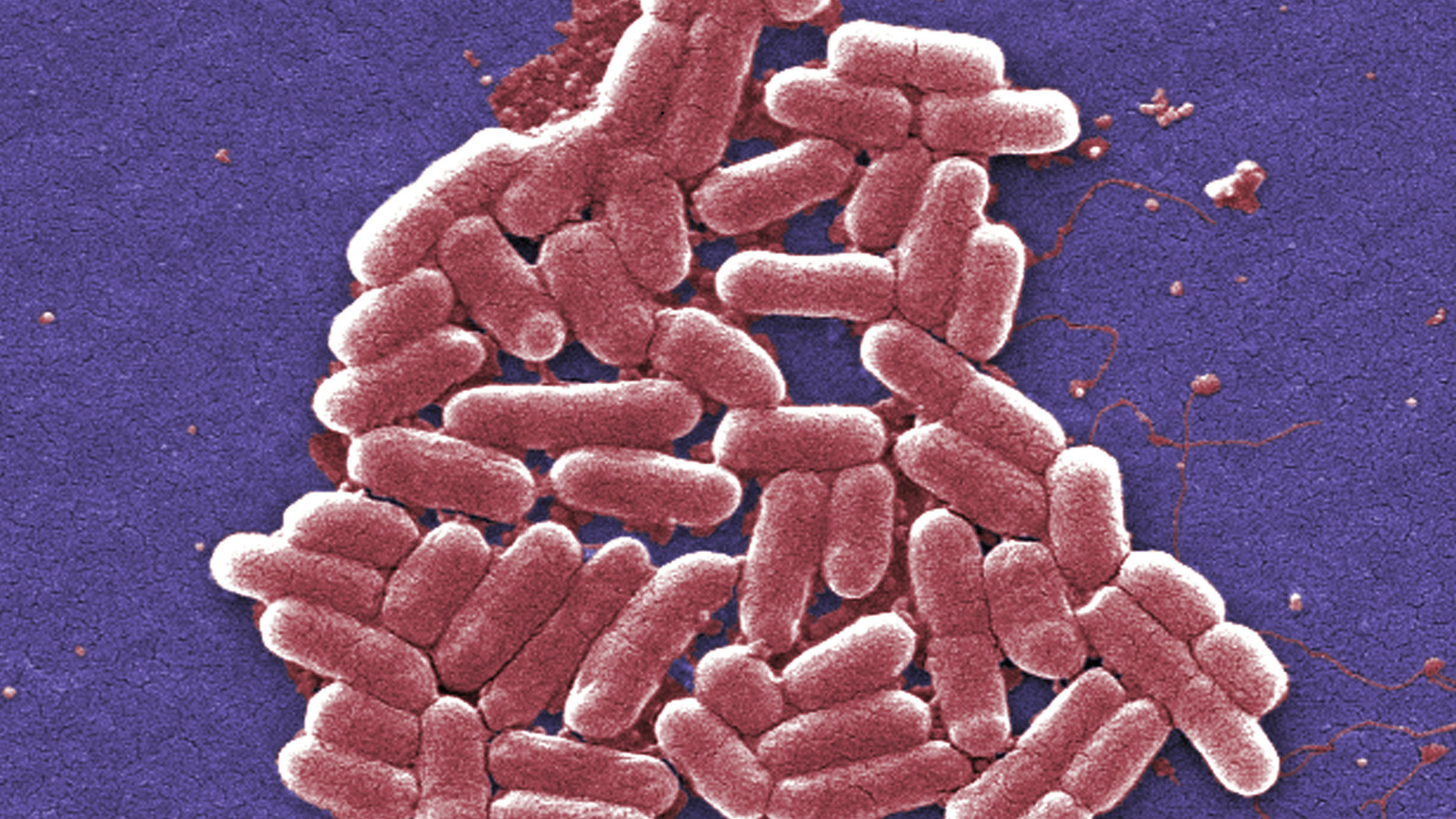 This 2006 colorized scanning electron micrograph image made available by the Centers for Disease Control and Prevention shows the O157:H7 strain of the E. coli bacteria. New research suggests that a worrying number of people in China are infected with bacteria resistant to an antibiotic used as a last resort. Researchers examined more than 17,000 samples from patients with infections of common bacteria found in the gut, in two hospitals in China's Zhejiang and Guangdong provinces, over eight years. About 1 percent of those samples were resistant to colistin, often considered the last option in antibiotics. The study was published Friday, Jan. 27, 2017 in the journal, Lancet