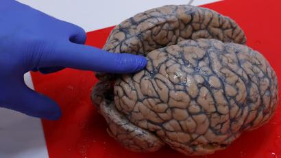Belgian researcher Schuermans examines a human brain, part of a collection of more than 3,000 brains that could provide insight into psychiatric diseases, at the psychiatric hospital in Duffel