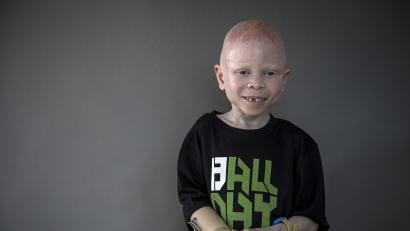 5-year-old Baraka Cosmas Lusambo from Tanzania poses for a portrait in the Staten Island borough of New York in the Staten Island borough of New York, September 21, 2015. Albino body parts are highly valued in witchcraft and can fetch a high price. Superstition leads many to believe albino children are ghosts who bring bad luck. Some believe the limbs are more potent if the victims scream during amputation, according to a 2013 United Nations report. Albinism is a congenital disorder affecting about one in 20,000 people worldwide who lack pigment in their skin, hair and eyes. It is more common in sub-Saharan Africa and affects about one Tanzanian in 1,400. United Nations officials estimate about 75 albinos have been killed in the east African nation since 2000 and have voiced fears of rising attacks ahead of this year's election, as politicians seek good luck charms from witch doctors. Picture taken September 21, 2015.
