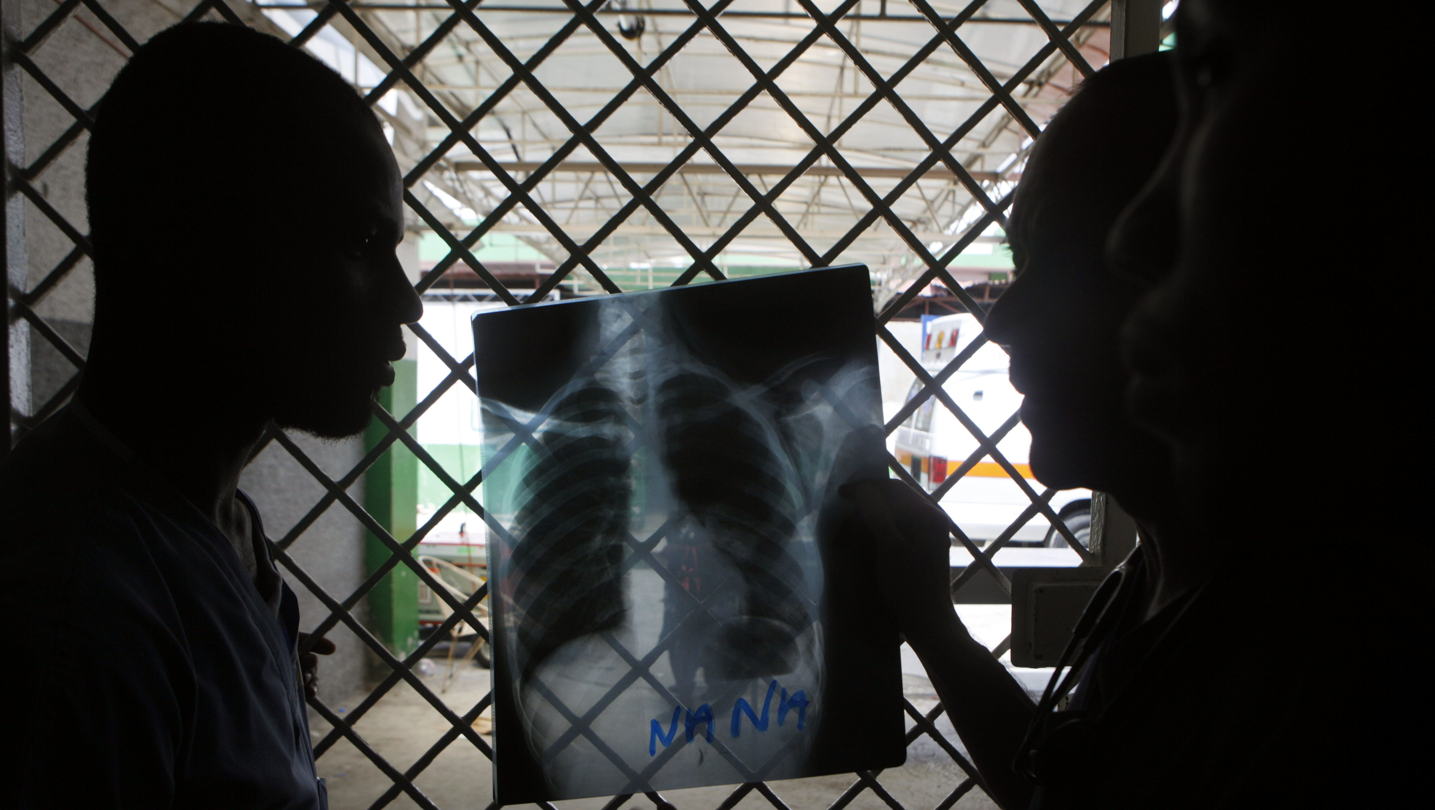 In this May 7, 2010 photo, doctors look at an X-ray using sunlight coming through a door's window in an emergency room at the General Hospital of Port-au-Prince.  From cracked hospitals to tent-camp clinics, aid groups are working furiously to treat patients amid failing generators and disappearing supplies while simultaneously struggling to build institutions from the rubble. (AP Photo/Esteban Felix)