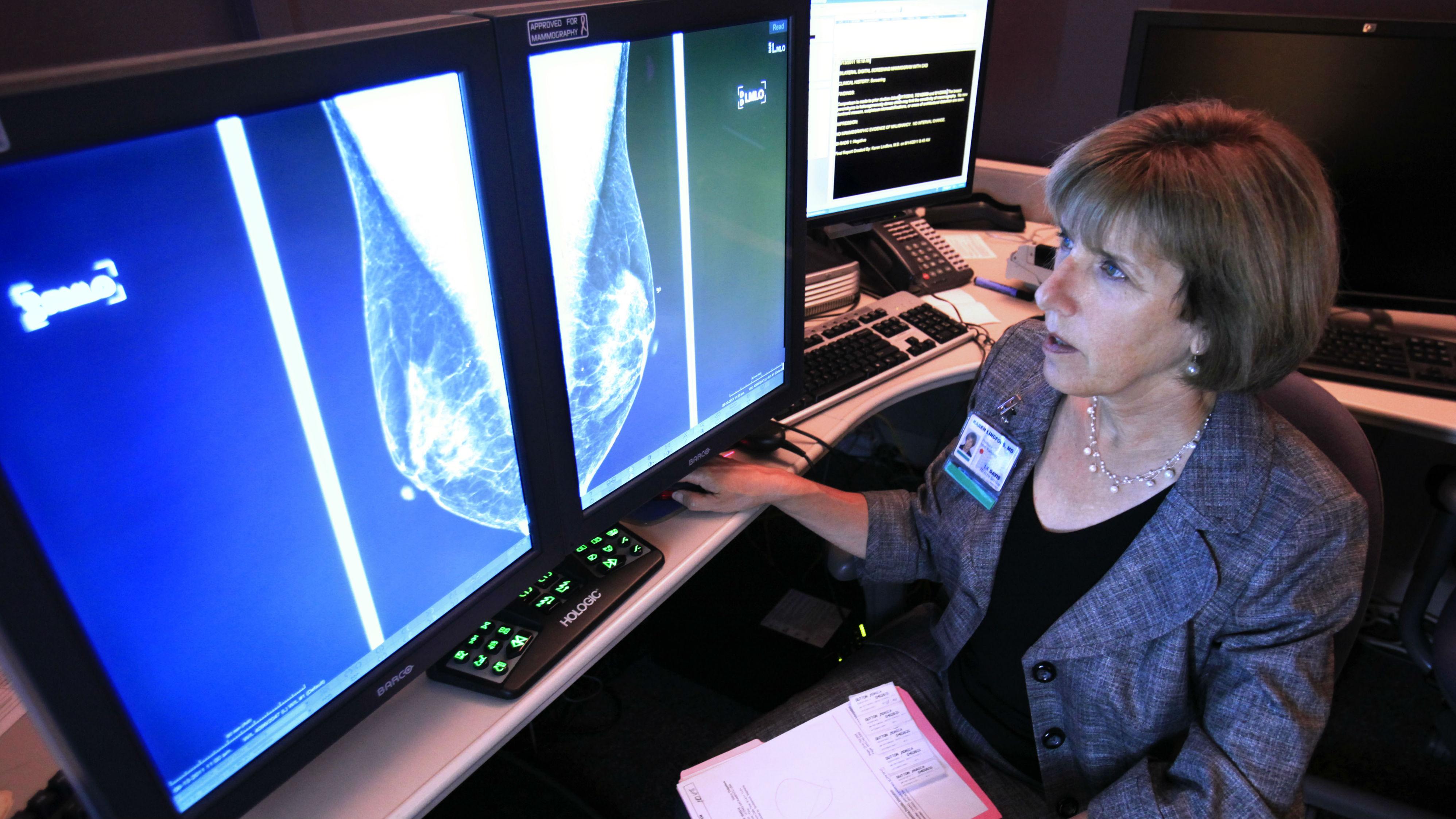 A radiologist examines mammograms.