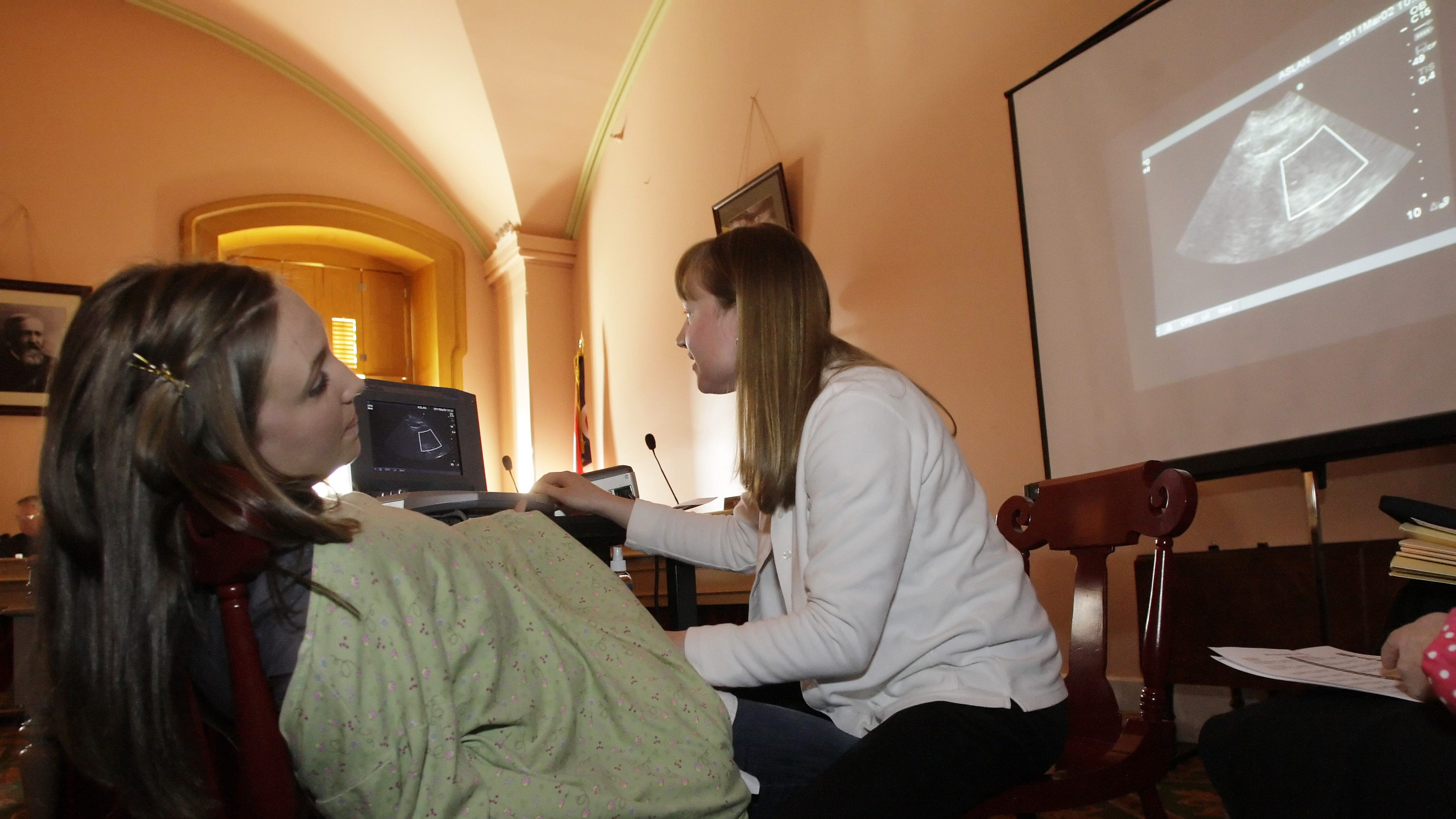 Registered nurse Julie Aber, right, of the Ashland Care Center, administers an ultrasound to Erin Glockner, of Pataskala, as testimony to the house committee on House Bill 125 continues Wednesday, March 2, 2011, in Columbus, Ohio. House Bill 125, also known as the heartbeat bill, prohibits abortions after the first detectable heartbeat. (AP Photo/Jay LaPrete)