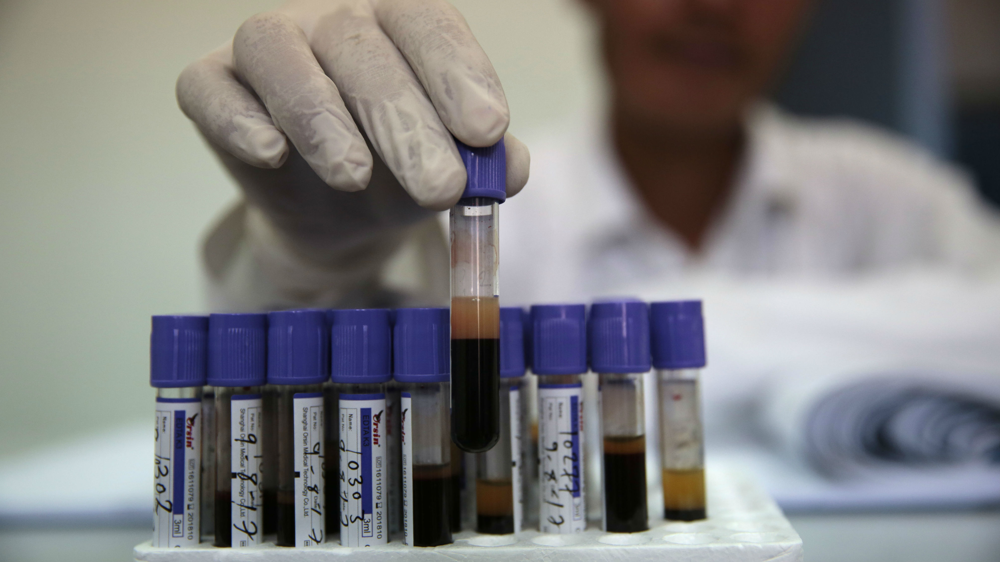 A worker sorts blood samples for testing at a laboratory at the National Blood Transfusion and Research Centre, in Sanaa, Yemen, Wednesday, Aug. 9, 2017.