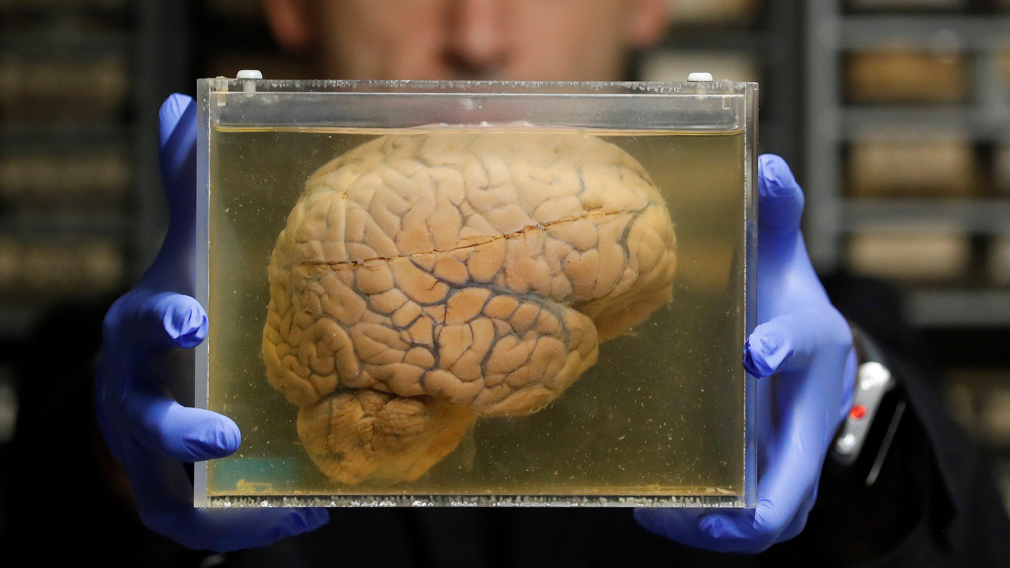Powers Effects On The Brain Help Explain Sexual Harassment Quartz