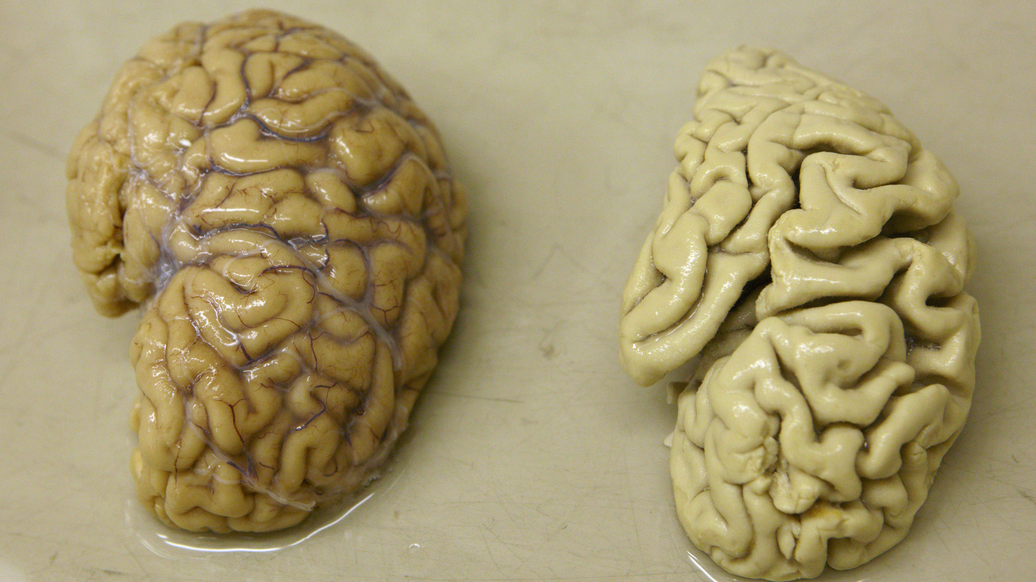 A healthy brain next to a brain with Alzheimer's disease.
