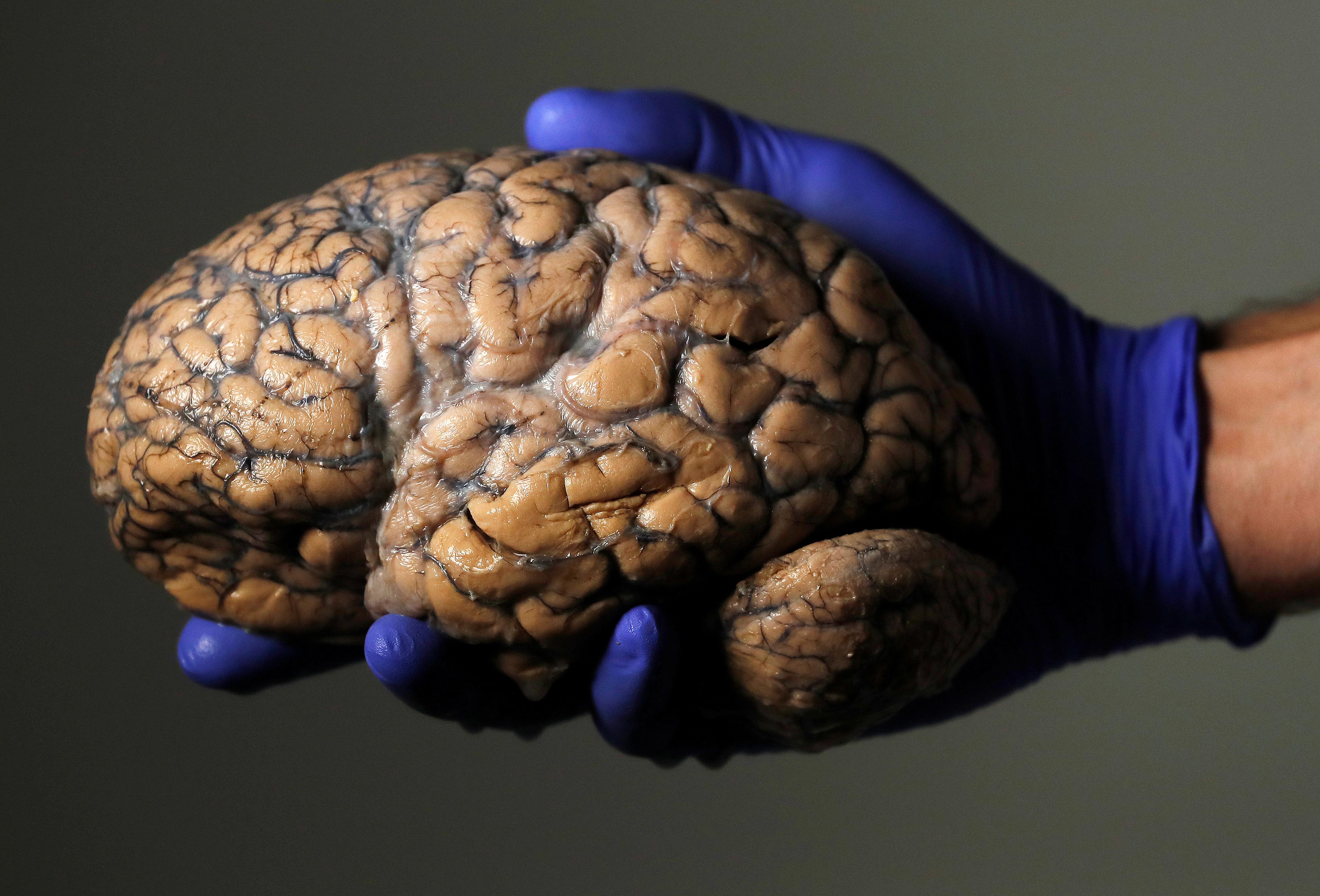 STUDY Shape of  brain influences political views