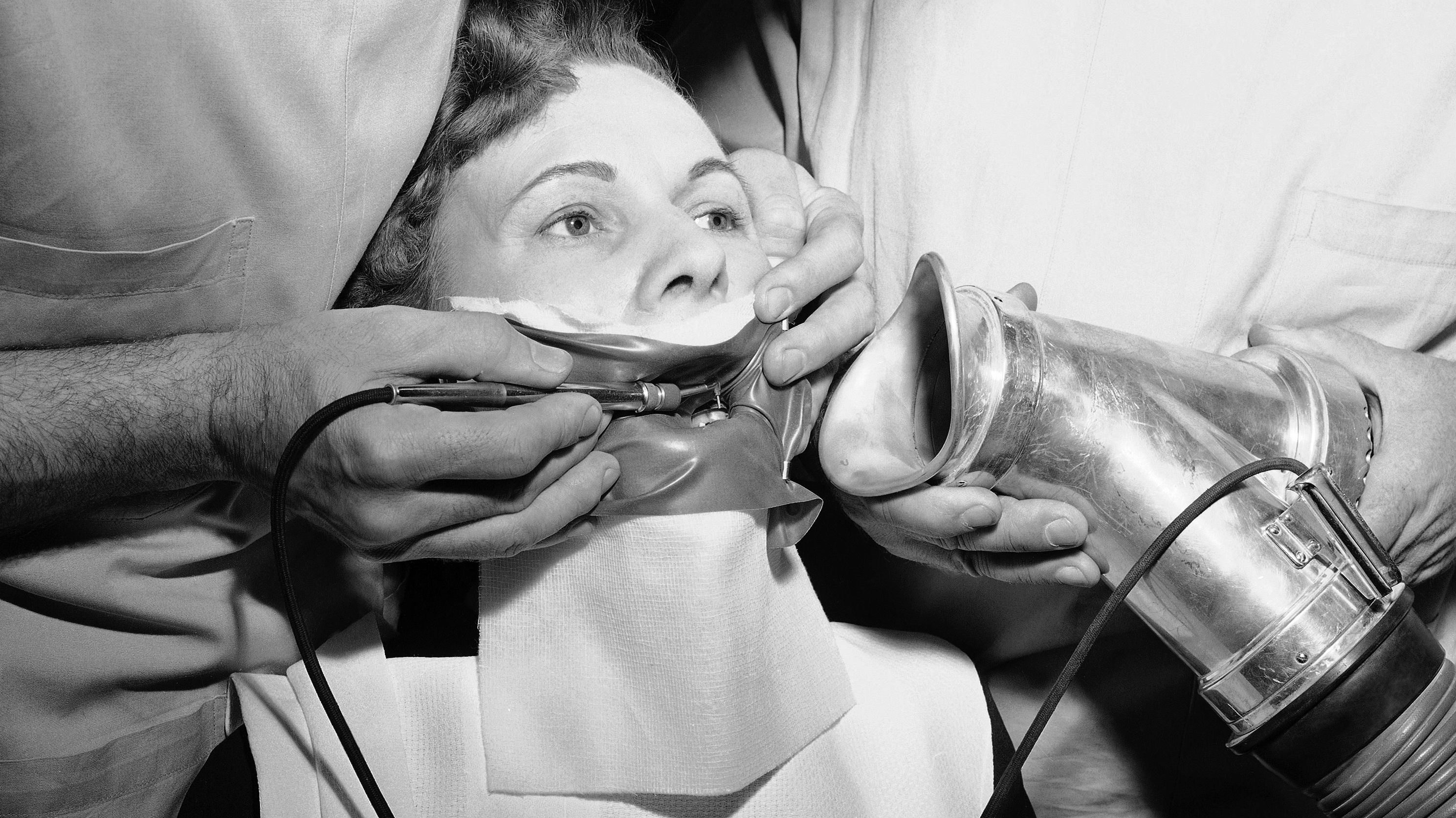 Dr. John V. Lenburg (left) demonstrates how a patient's tooth is prepared for fillings with the new air-cutter dental tool, June 9, 1950. The patient is his wife. Dr. O.W. Silberhorn assists him by holding the exhaust tube for carrying away the abrasive powder by vacuum. Called the Airdent, the dental tool utilizes the principle of air-driven abrasives. Tooth structure is removed by operation of a foot pedal switch which controls the flow of abrasives from the tiny nozzle held over the area to be cut by the dentist. Carbon dioxide gas propels the abrasive powder aluminum oxide for cutting cavities and another for cleaning teeth. The rubber mask over the mouth of the patient is used to keep the tooth to be air-drilled dry.