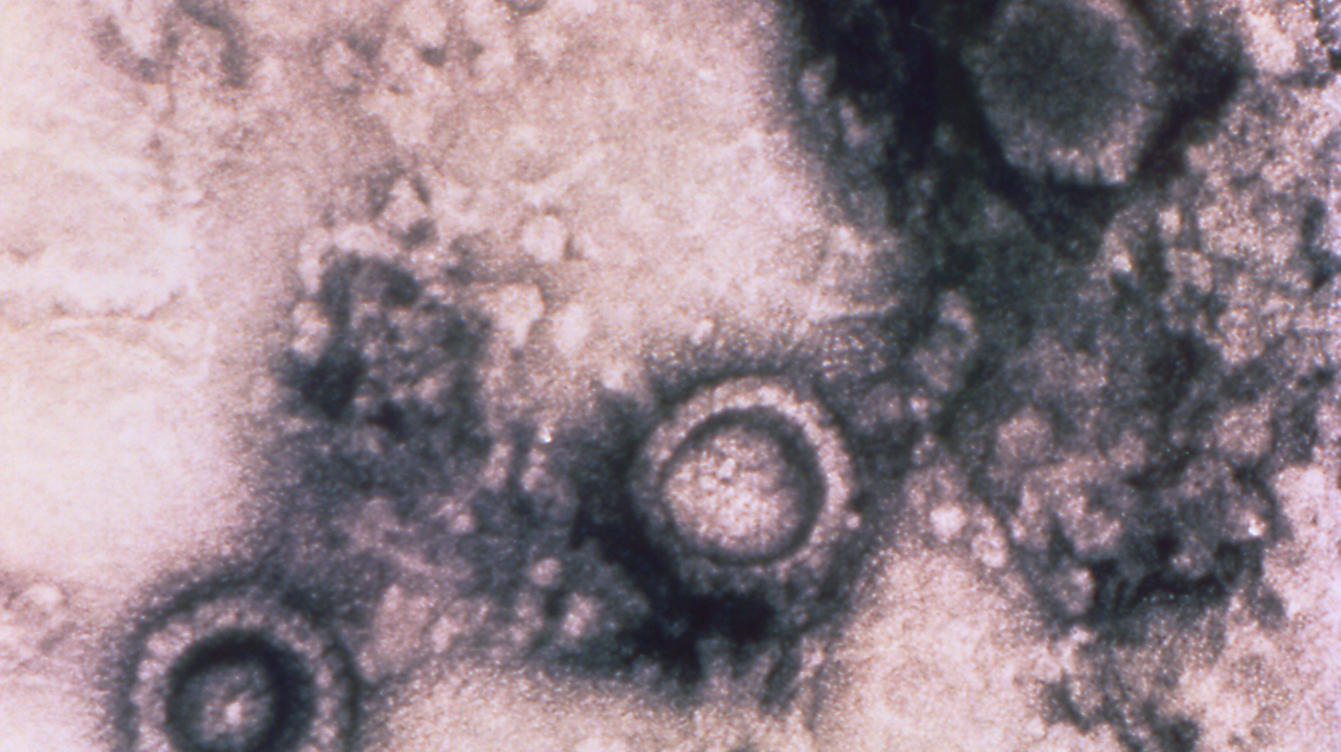 This digitally colorized transmission electron microscopic (TEM) image, from a pelleted specimen, depicts three icosahedral-shaped herpes virus particles. The staining technique used to process this specimen revealed virions with a dark center, where the stain has penetrated, indicated a capsid with no DNA, while a virion with a light center, where there was no stain penetration, indicated a nucleocapsid, consisting of a capsid, plus its DNA core.