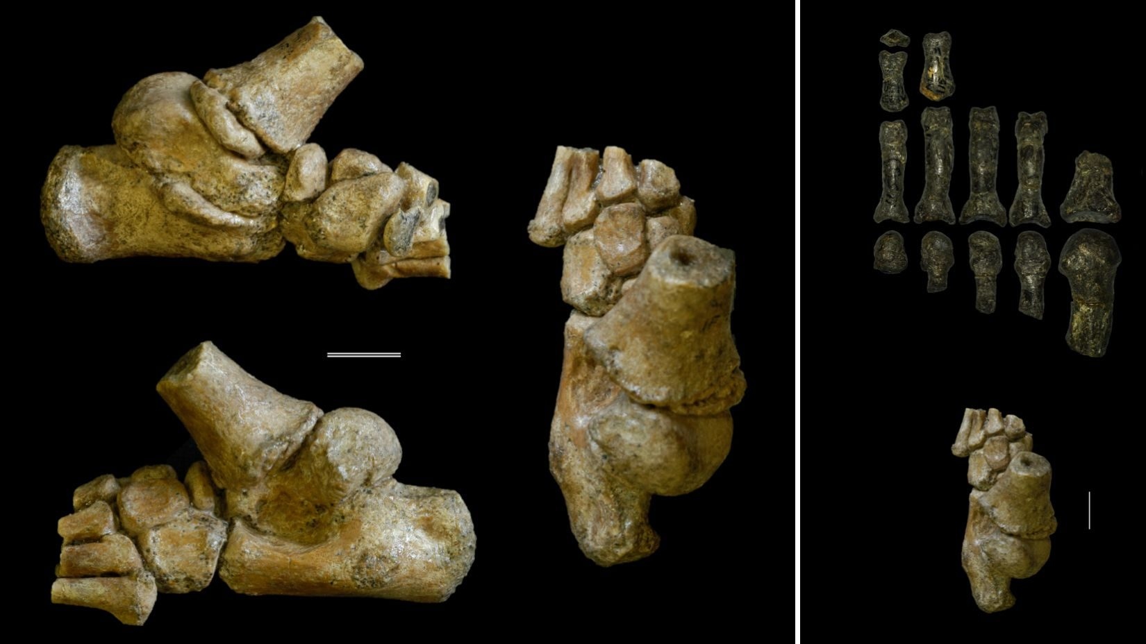 The foot of the world's oldest toddler