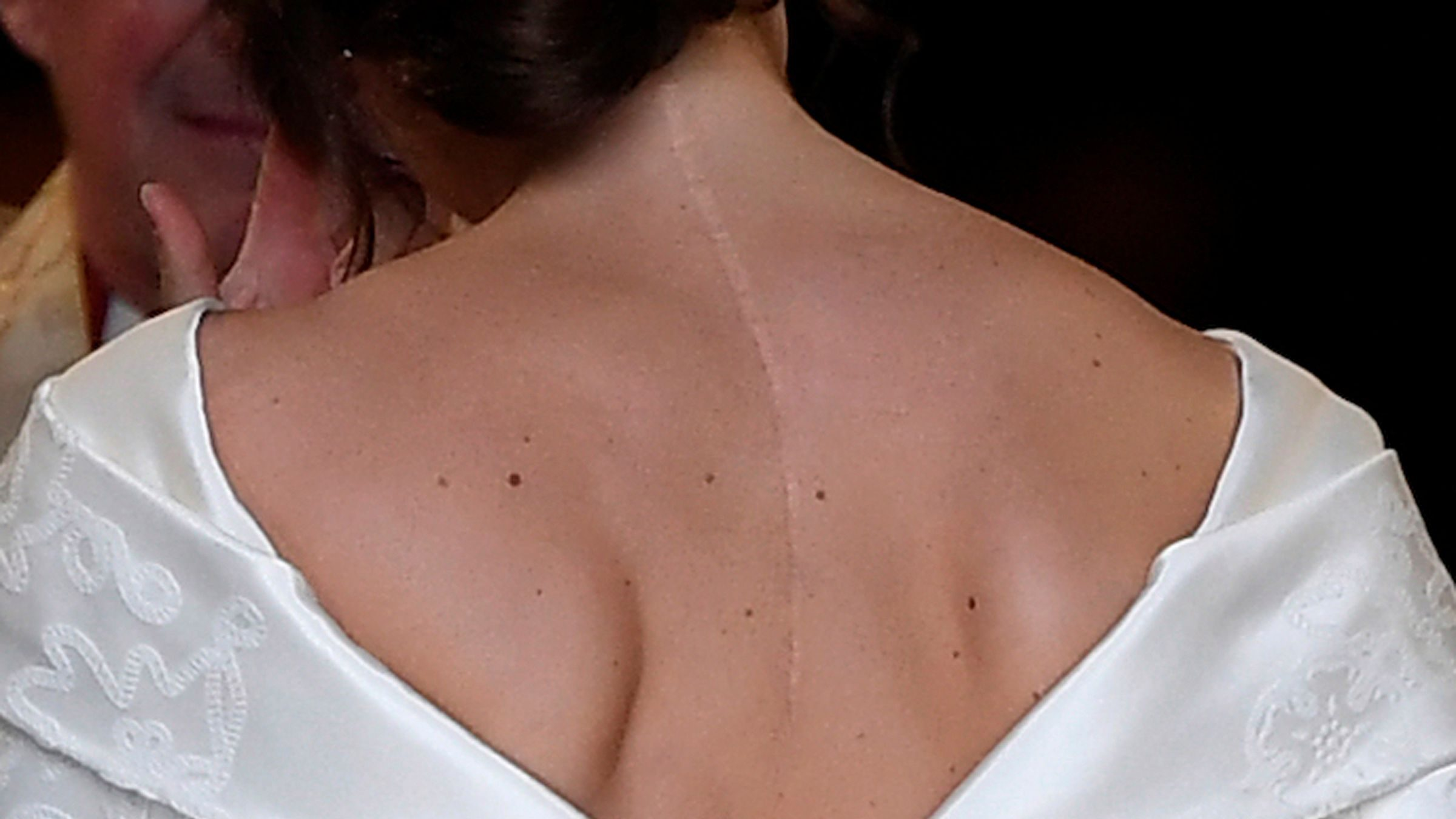 Princess Eugenie wanted her wedding dress to show her scoliosis scar