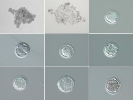 Embryo development from and Fatu and Suni