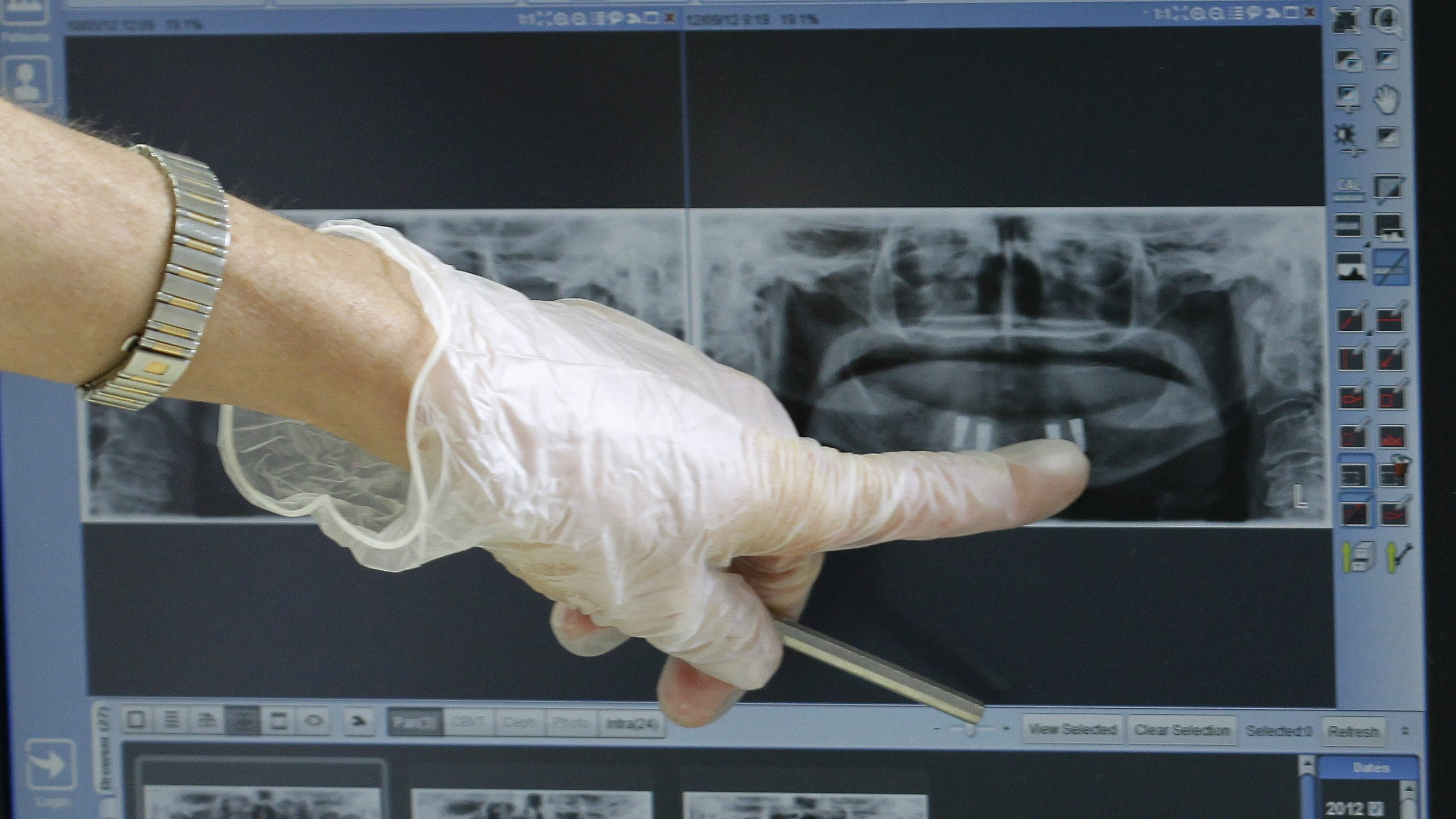 A person wearing a glove points at an X-ray of someones teeth.