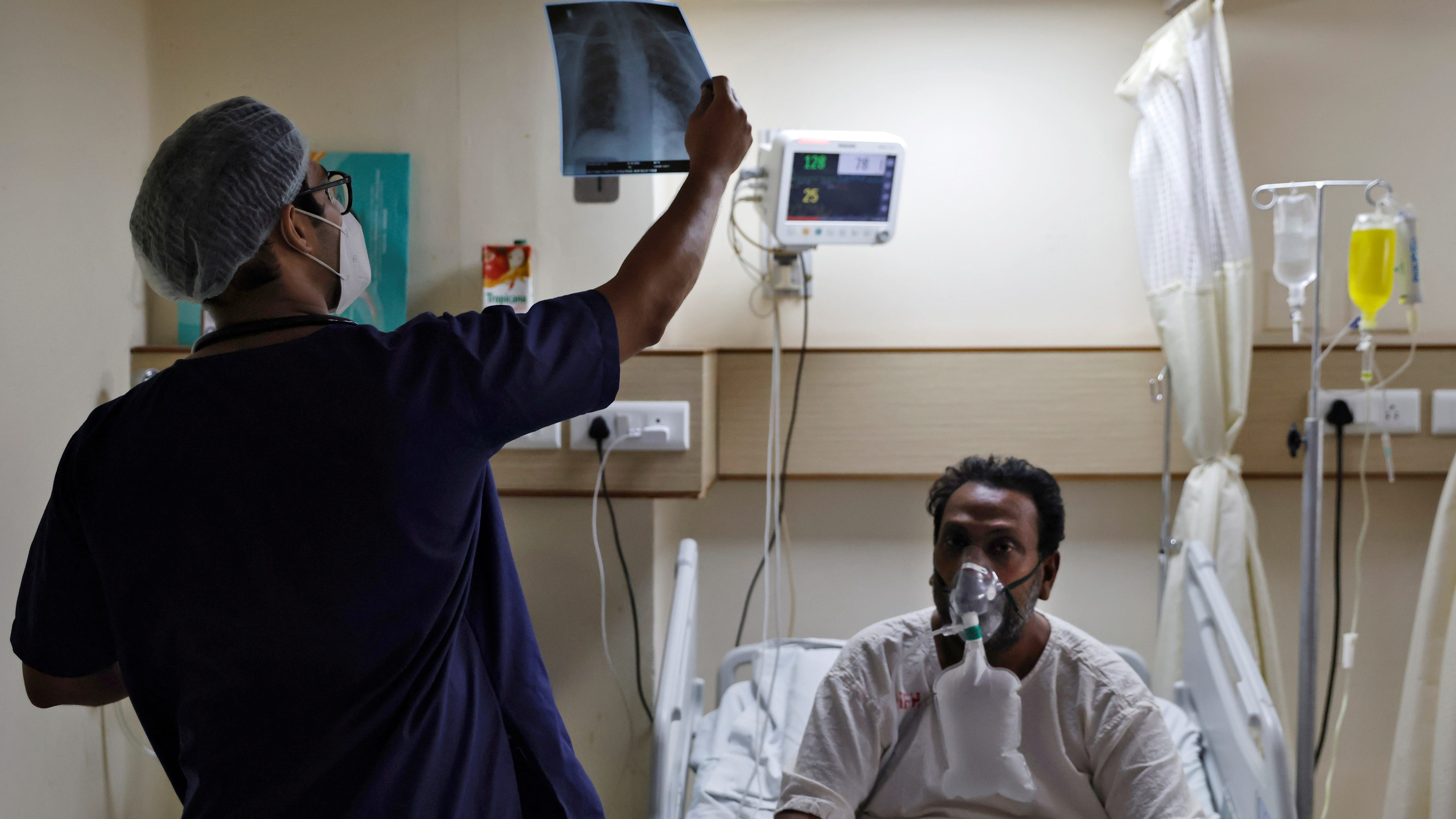 A doctor checks an X-ray of a patient suffering from the coronavirus disease (COVID-19) inside a COVID-19 ward of a hospital in New Delhi